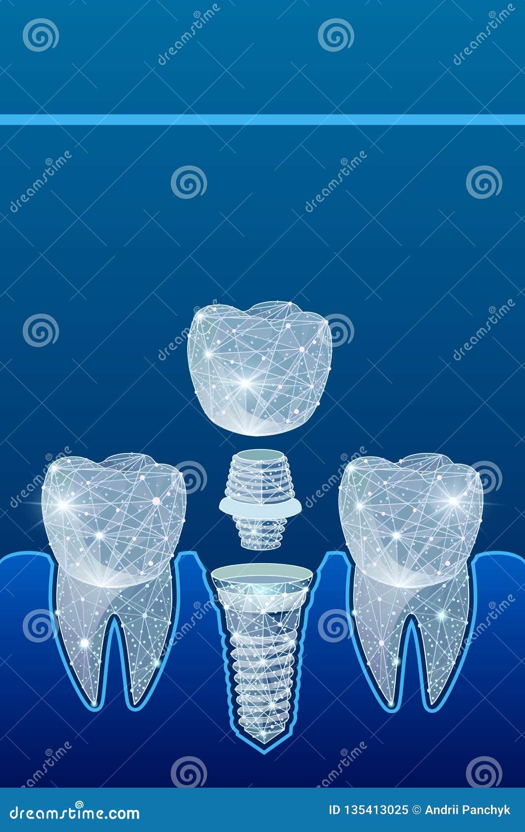 Здоровые зубы и зубной имплантат зубоврачевание Вживление человеческих зубов иллюстрация