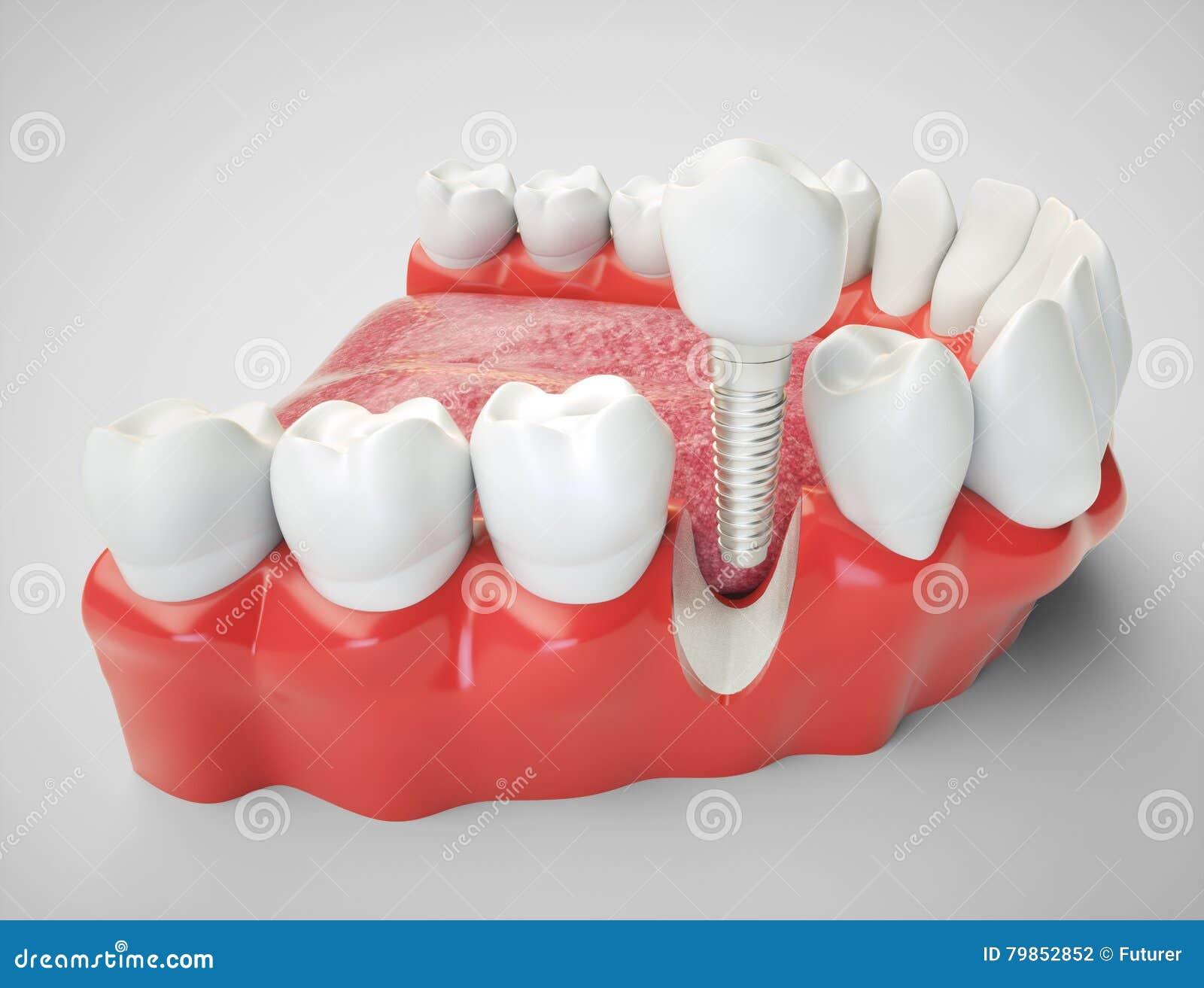 Зубной имплантат - перевод 3d