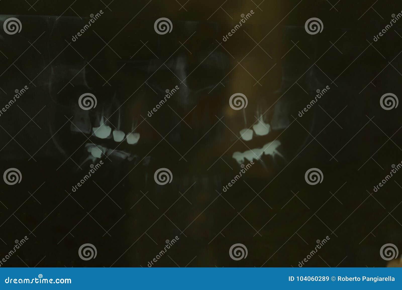 Зубные имплантаты рентгеновского снимка