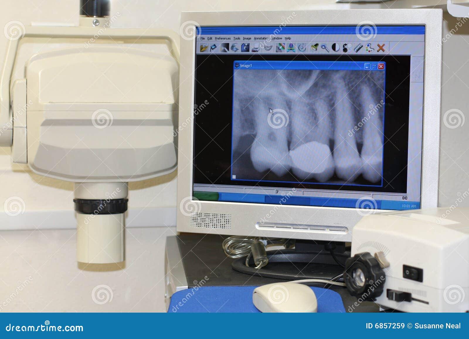 зубоврачебный самомоднейший луч x