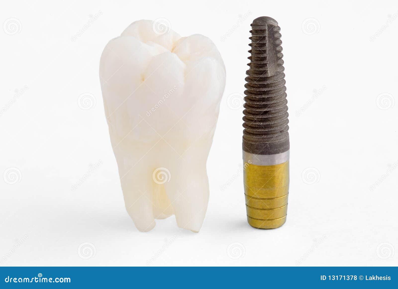 зубоврачебный implant