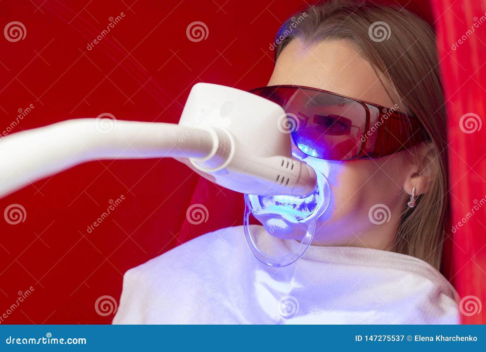 Зубы забеливая девушку сидят с апашем на зубах для зубов забеливая