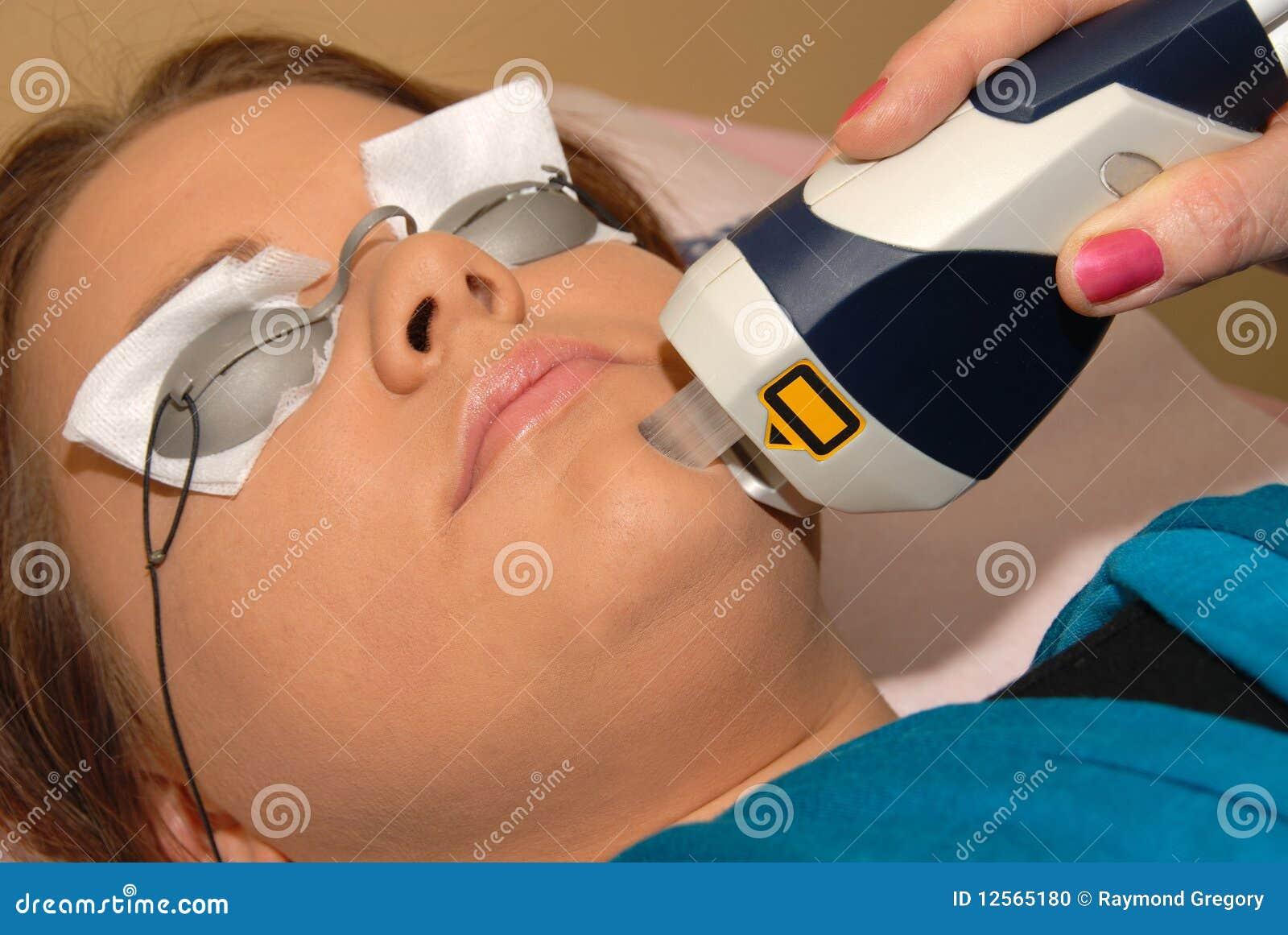 измените спу skincare пигмента лазера дня цвета
