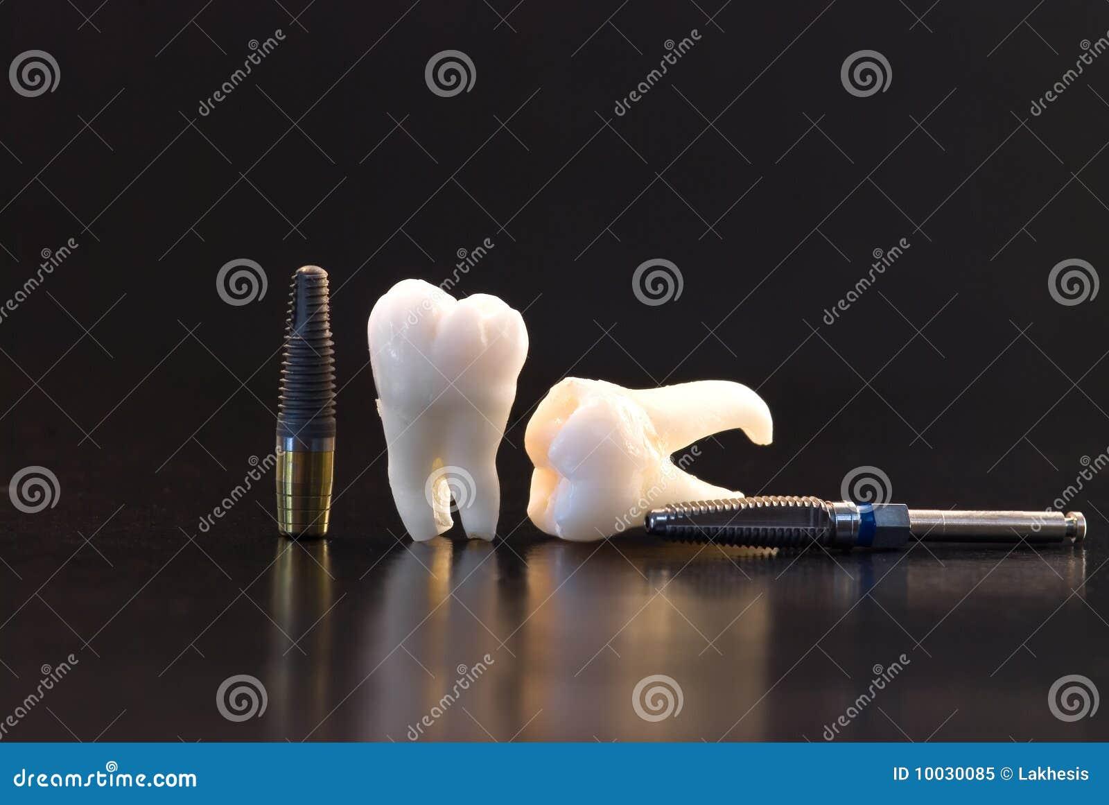 имплантирует зубы