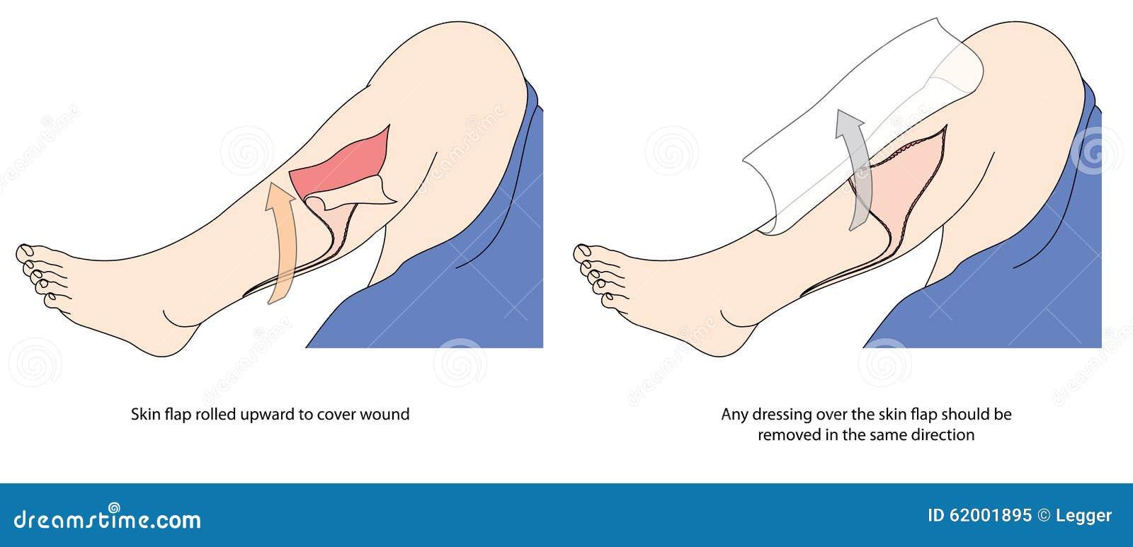 Как покрыть разрыв кожи
