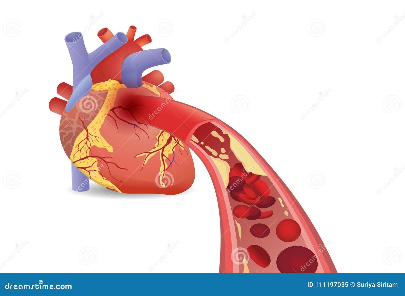 Клетка крови может подача ` t в человеческое сердце потому что закупоренные артерии наварным