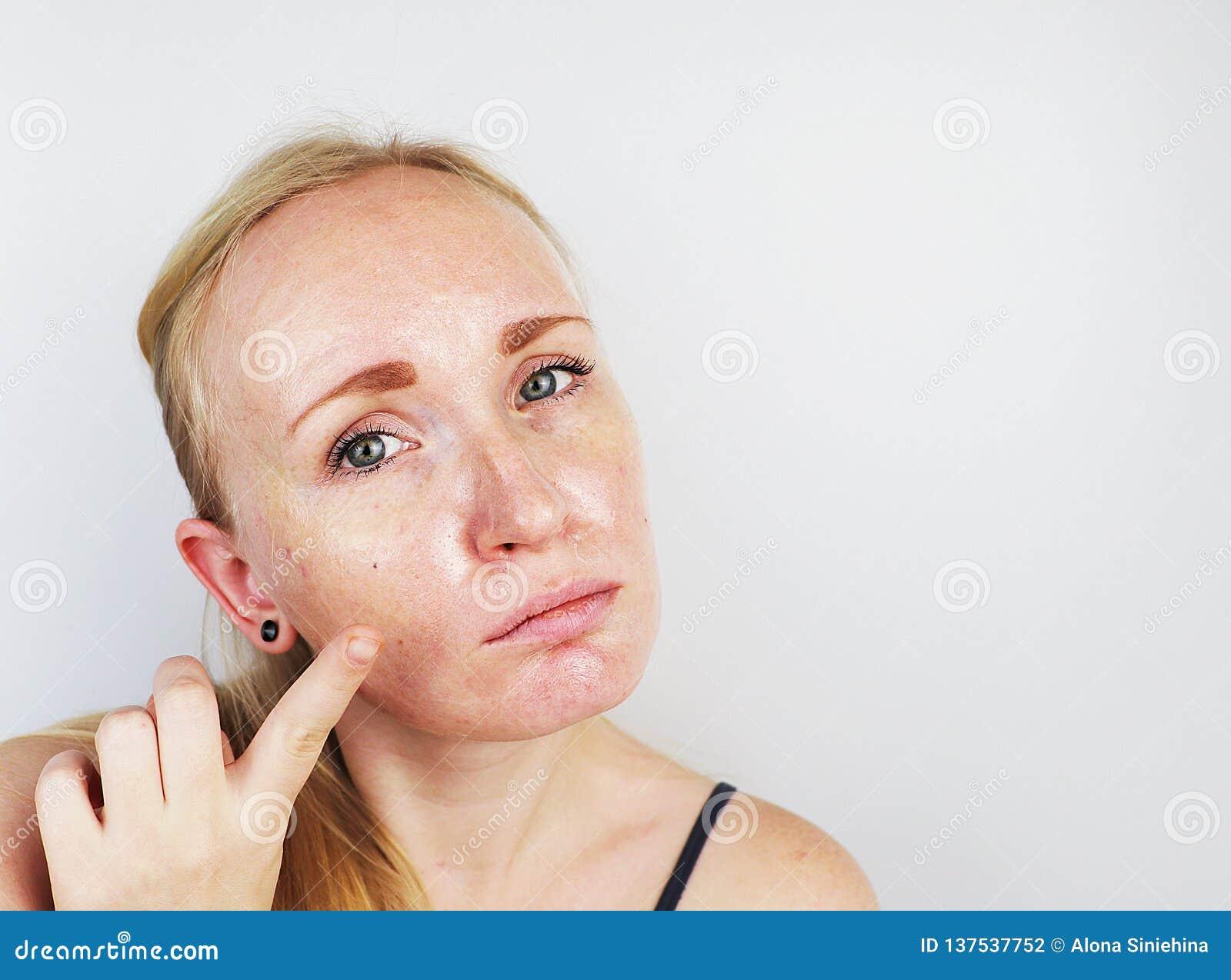 Кожа маслообразных и проблемы Портрет белокурой девушки с угорь, маслообразной кожей и пигментацией