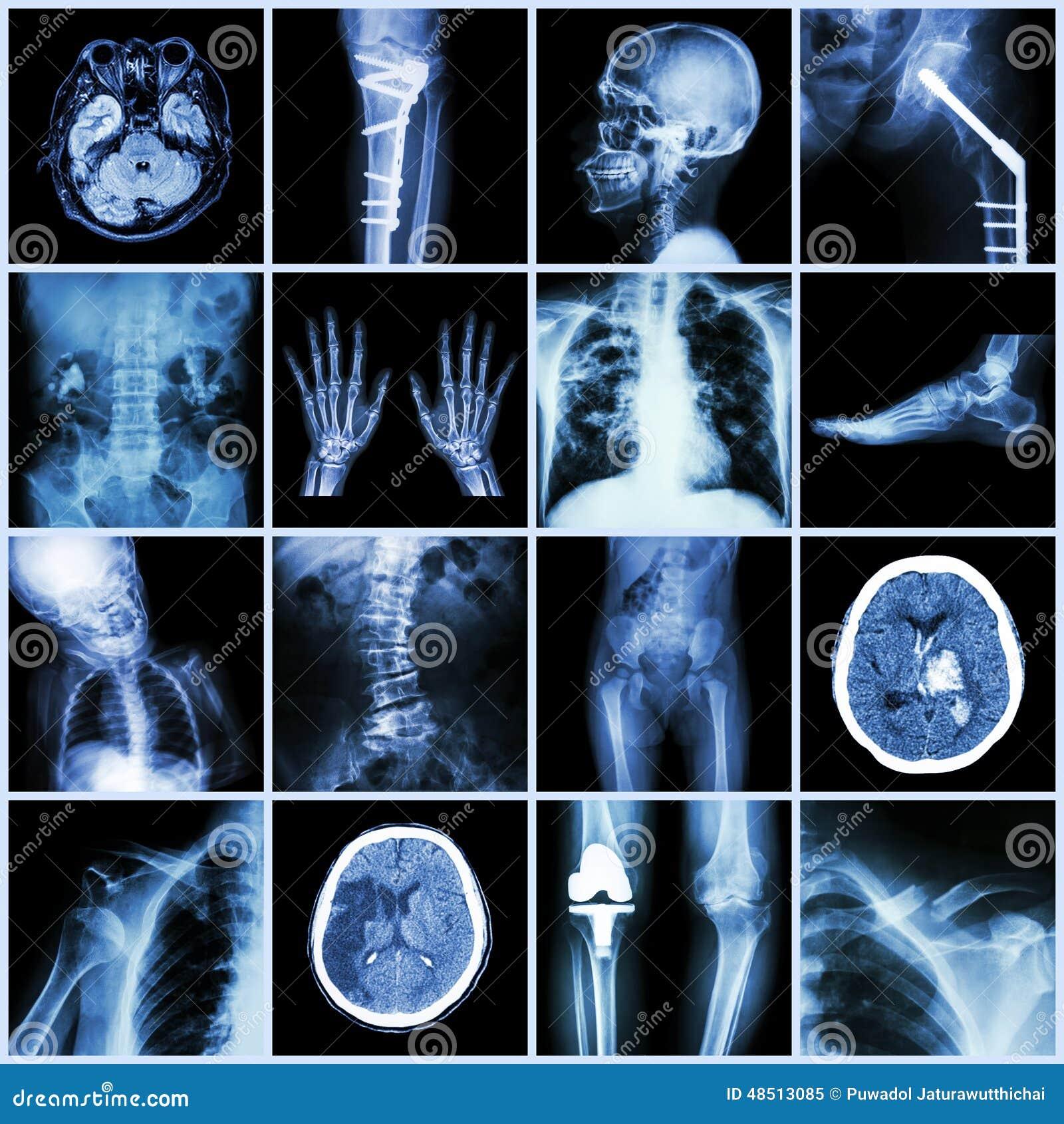 Комплект части рентгеновского снимка множественной человеческого, множественного заболевания, протезного, хирургии