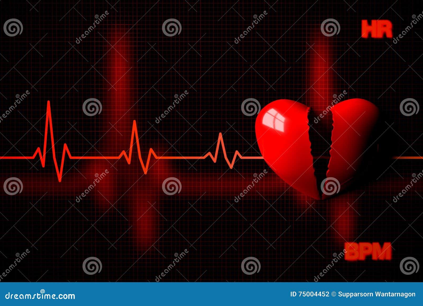 Концепция остановки сердца проиллюстрированная разбитым сердцем, переводом 3D