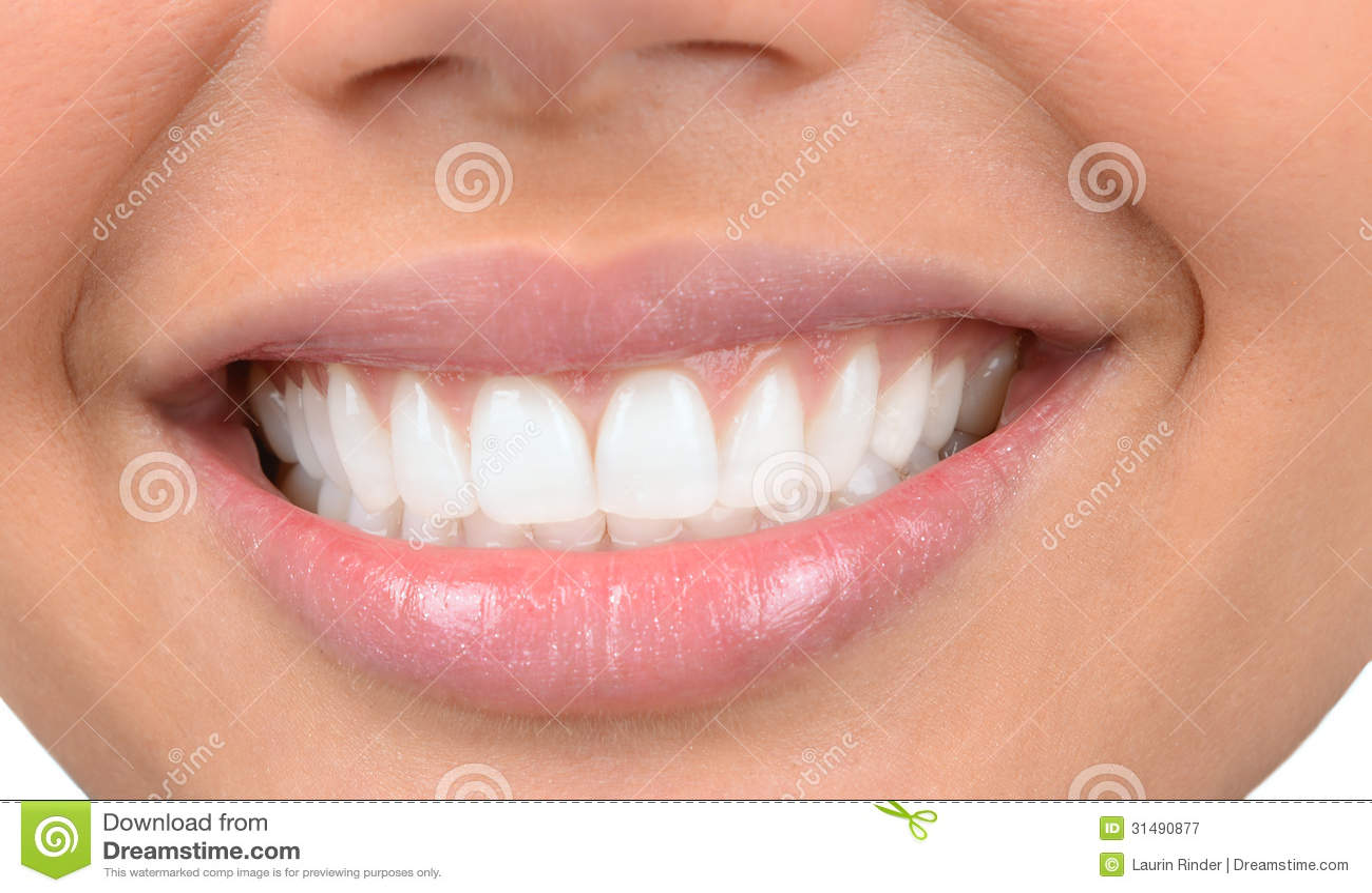 красивые белые зубы как делают
