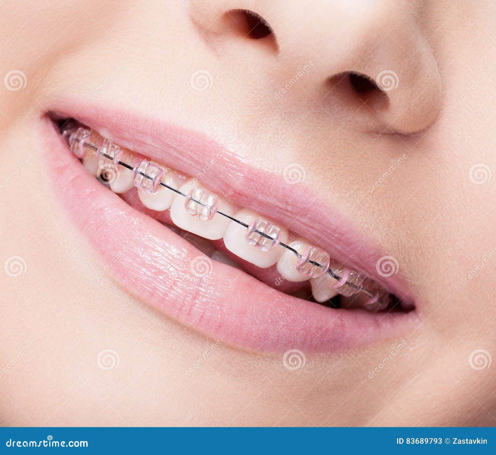 женщина с открытым ртом крупный план
