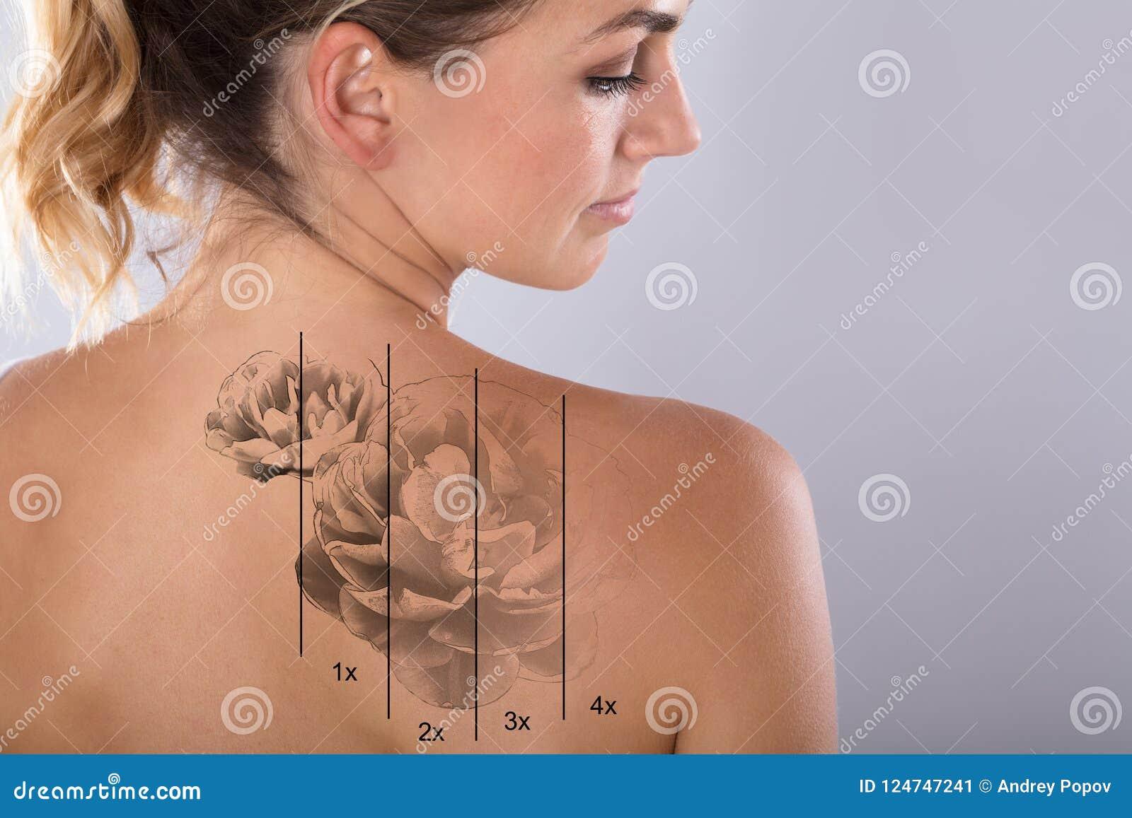 Лазер татуирует удаление на плече ` s женщины