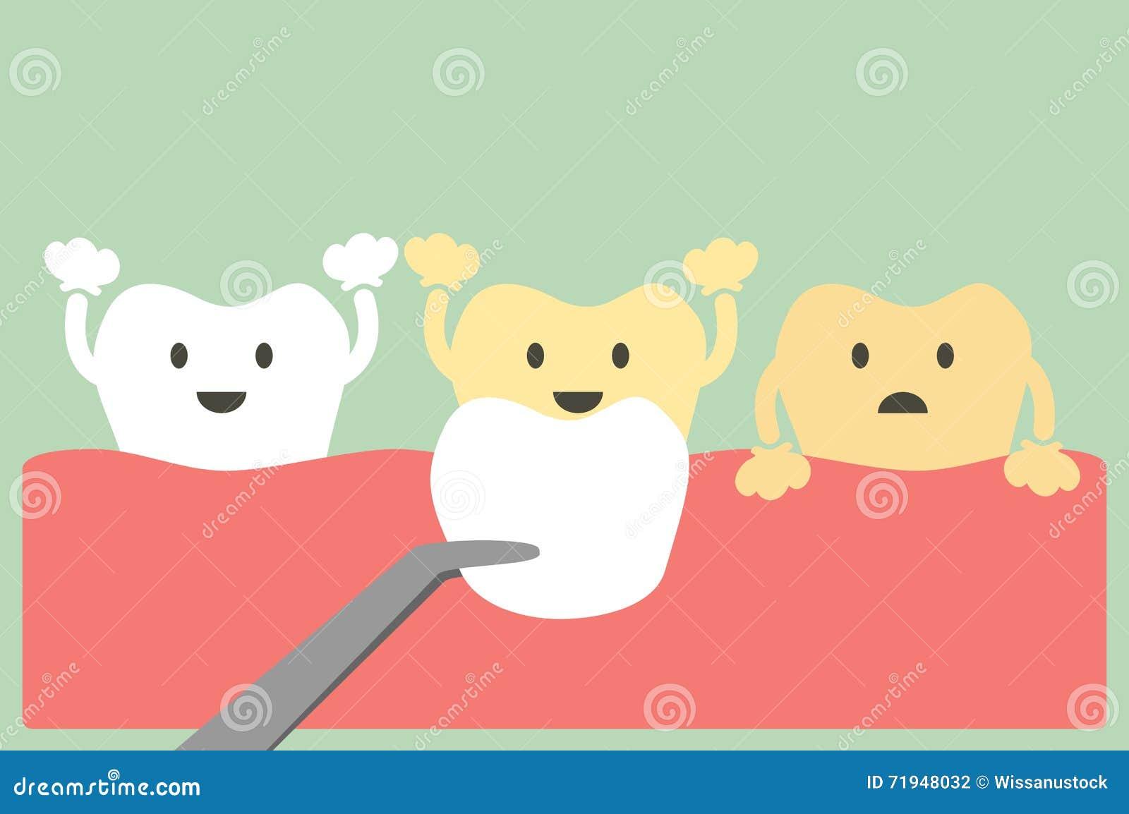 Лощит зубы
