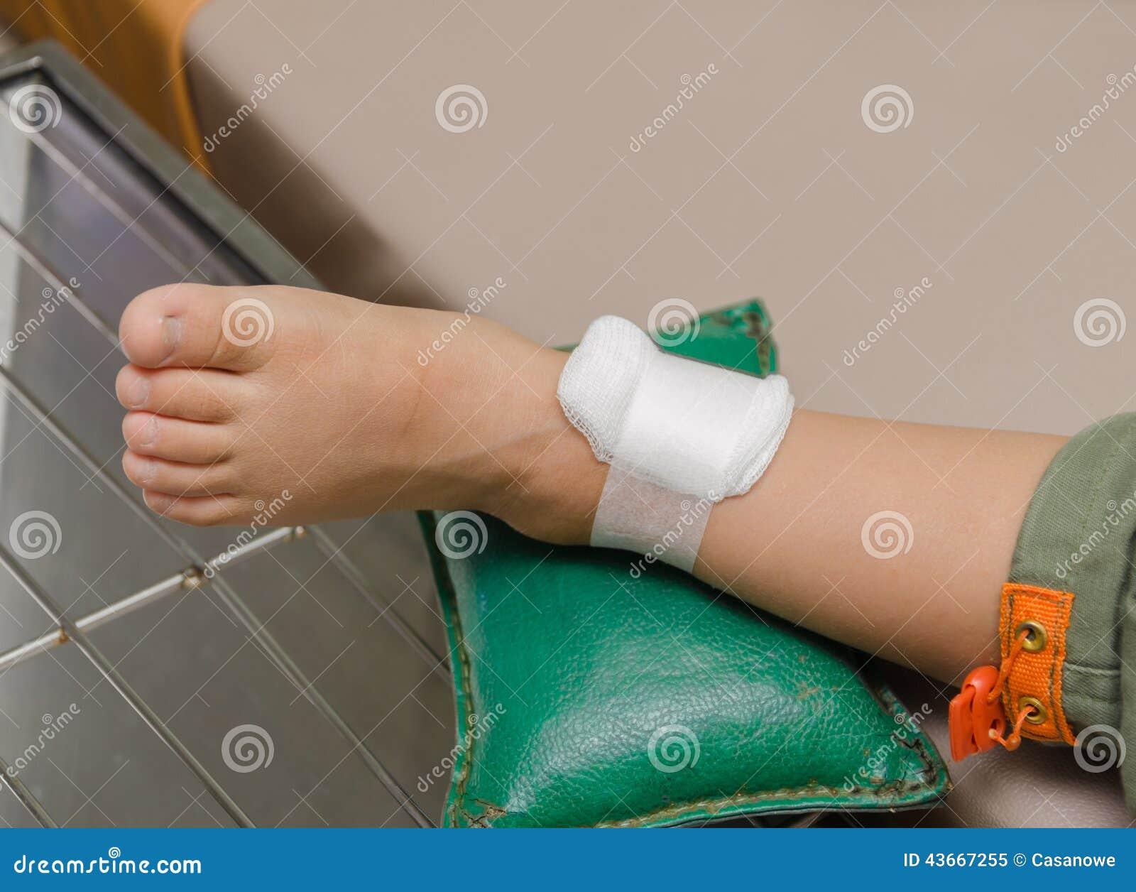 Гнойная рана лечение 84