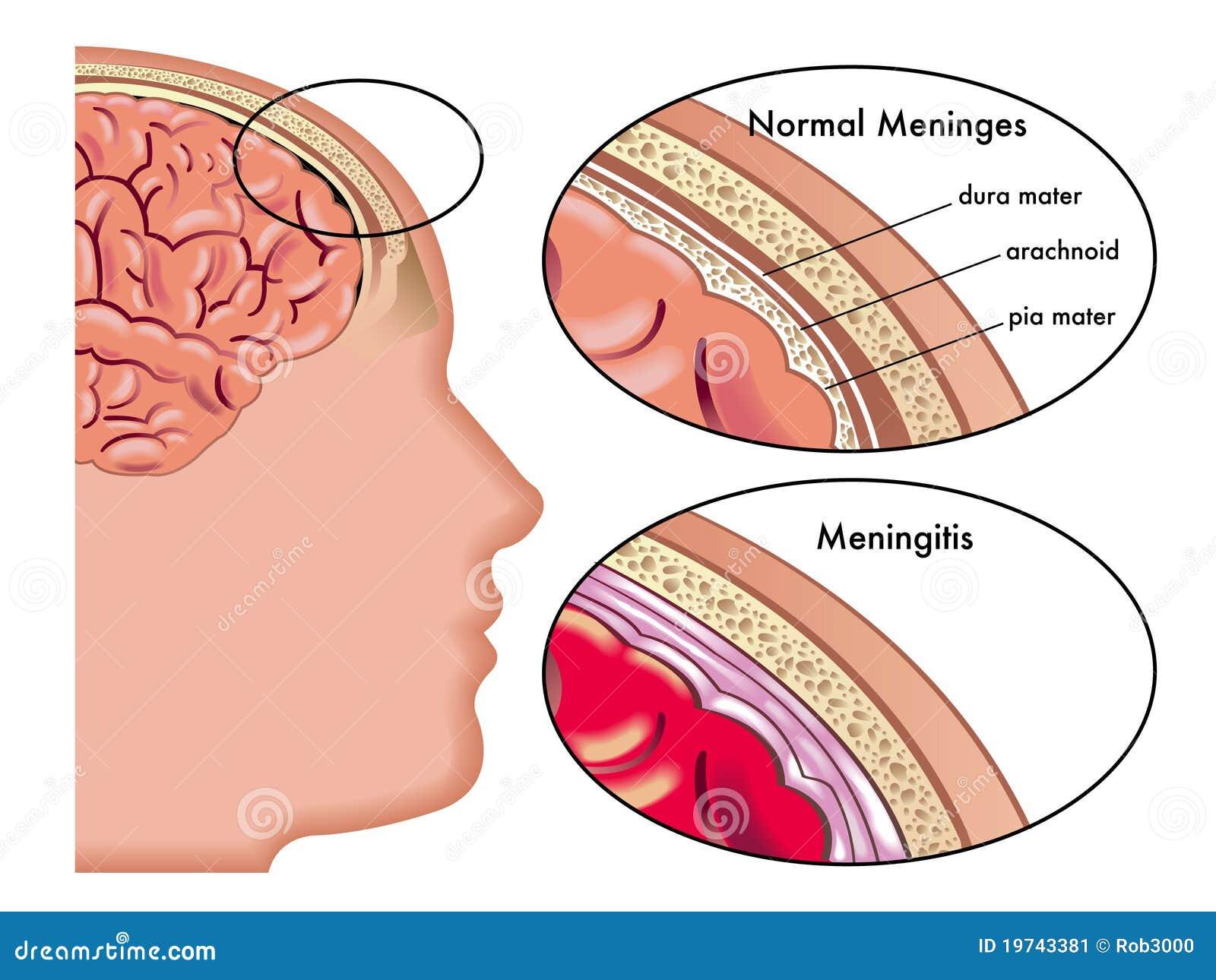 meningococcal meningitis causes and diagnosis