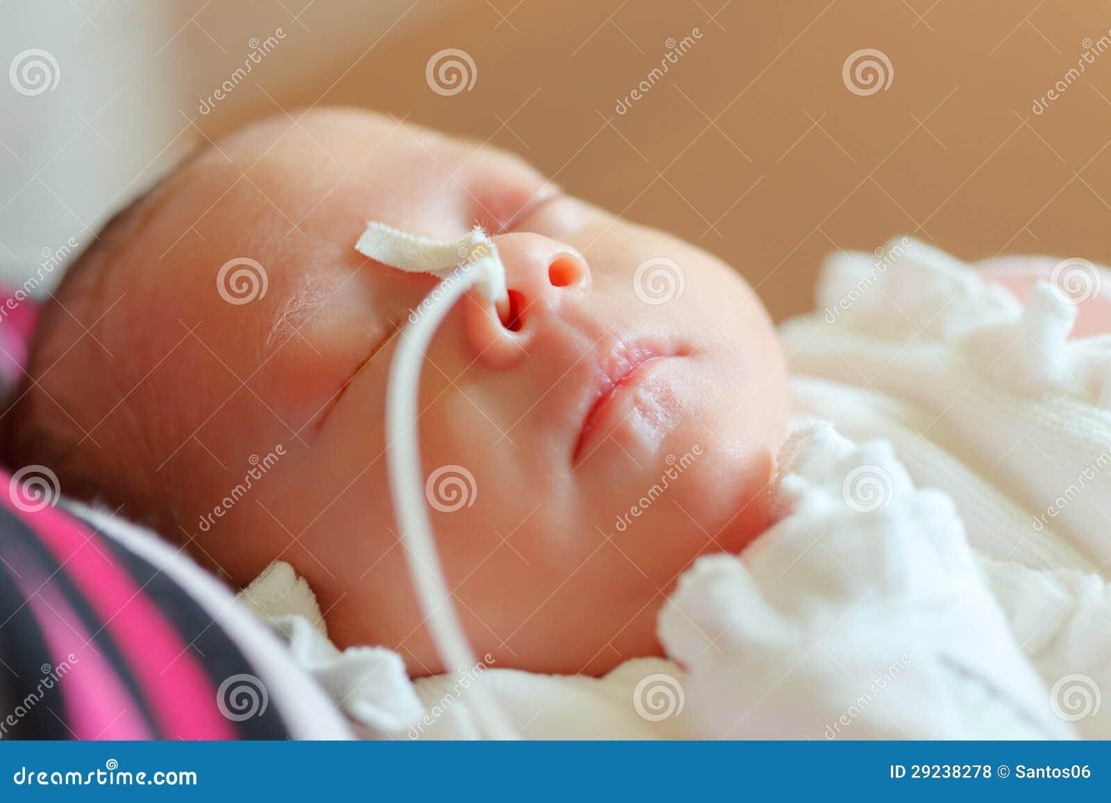 Младенец рожденный преждевремено