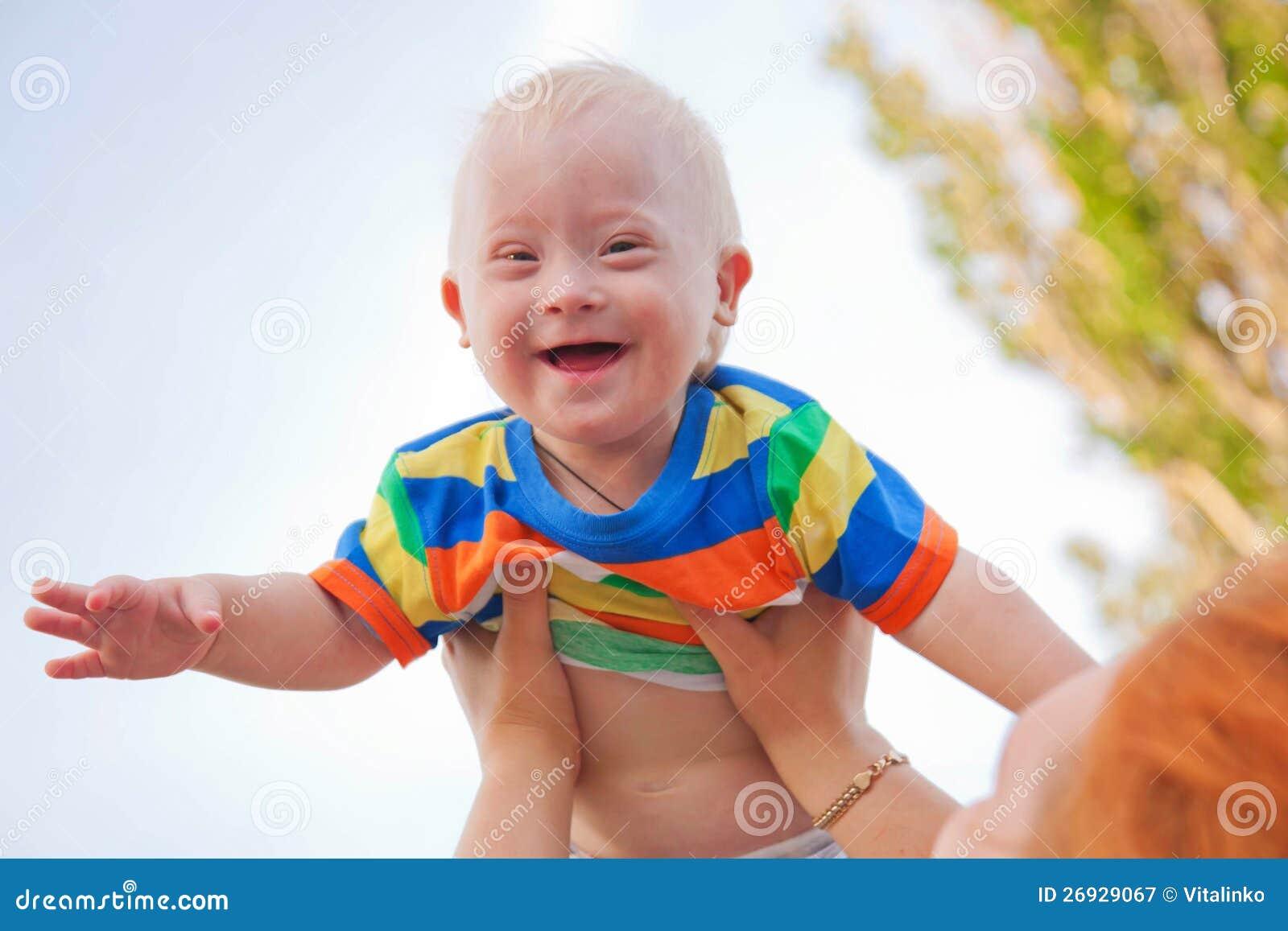 Младенец с Дошн Сындроме
