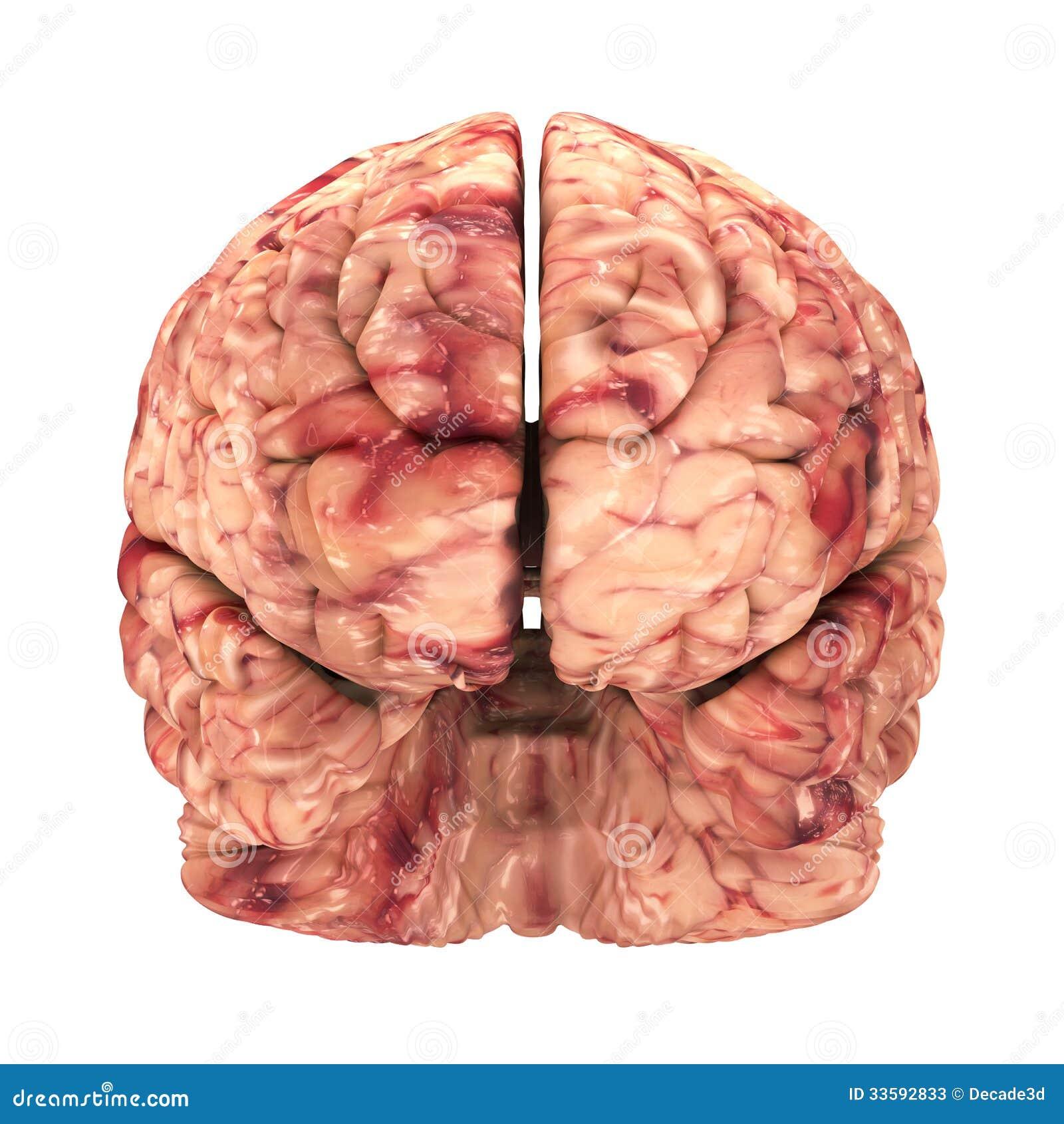 Фото мозг старого человека 2