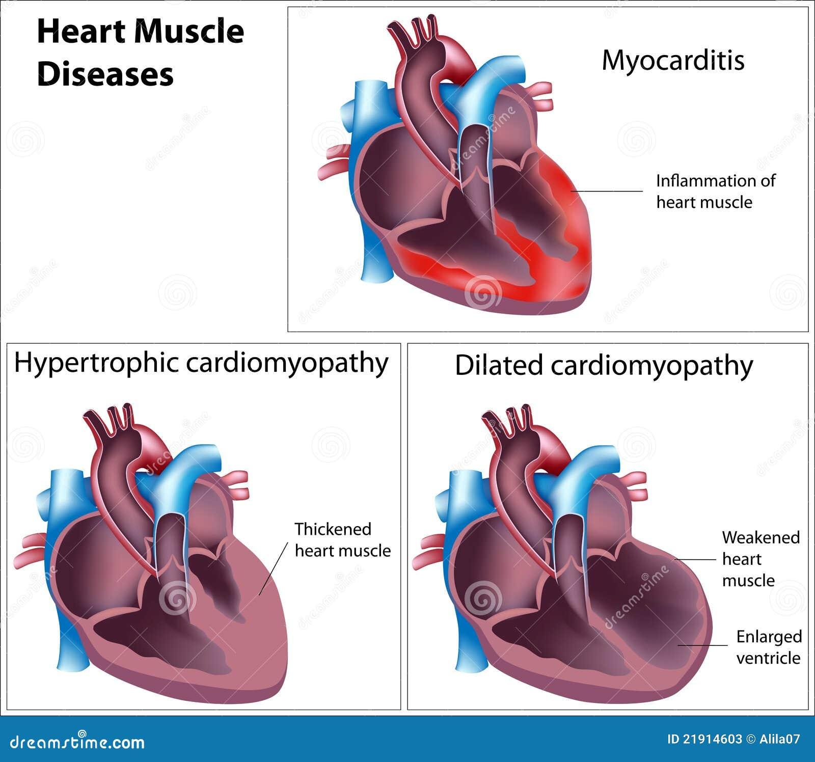 мышца сердца заболеваниями