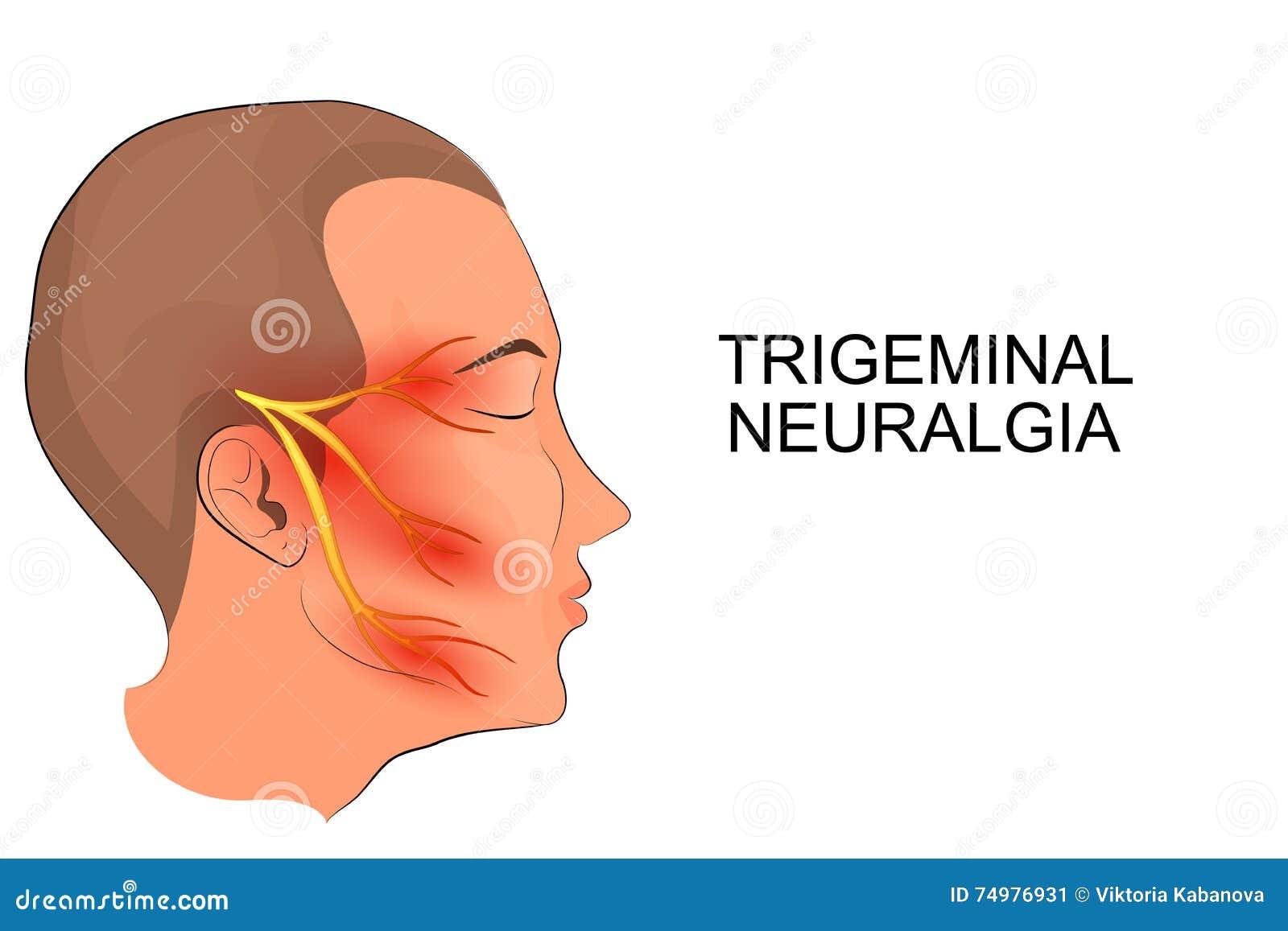 Затылочный нерв, воспаление: симптомы и лечение 34