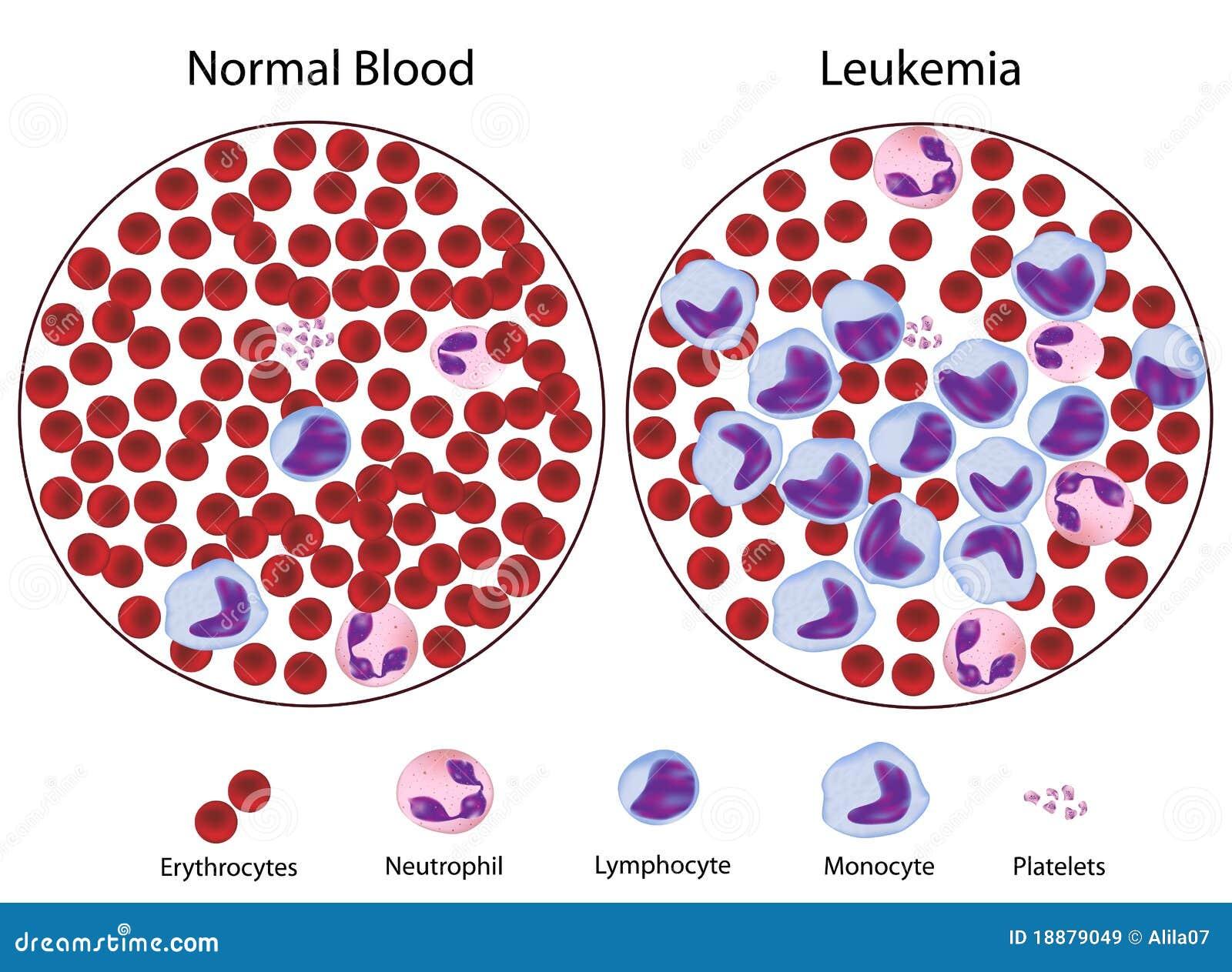 нормальный крови leukemic против