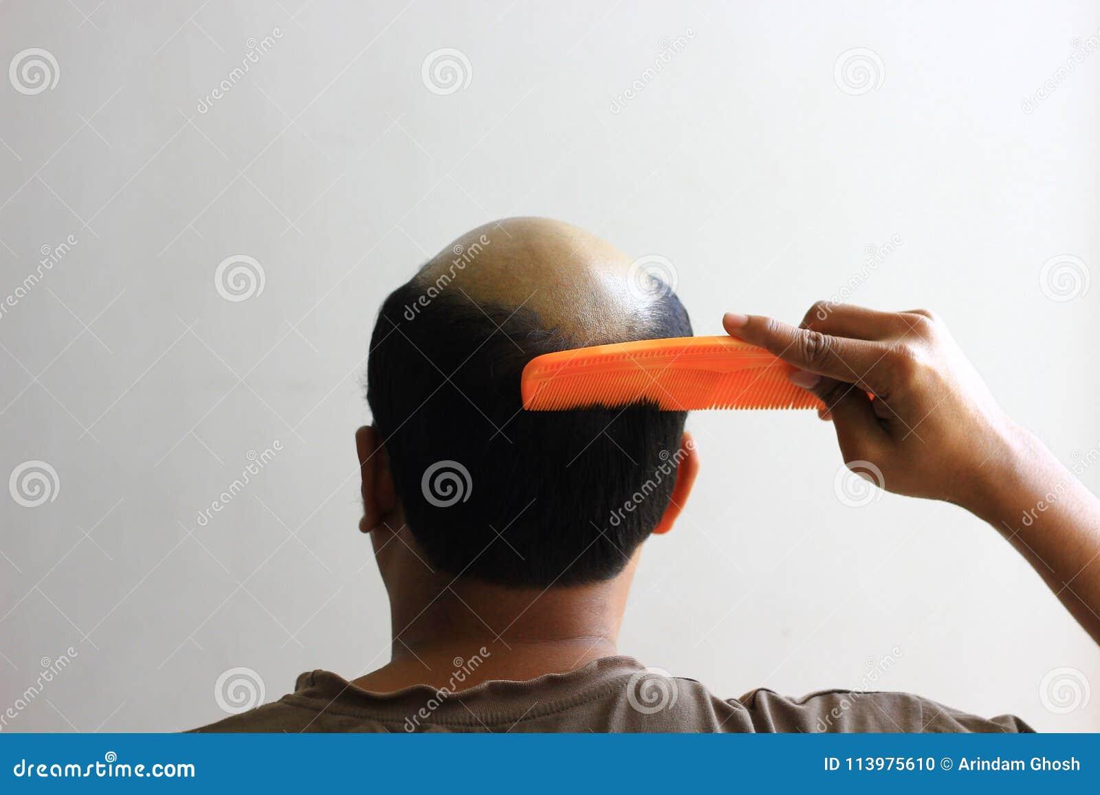 Облыселый человек в белой предпосылке пробуя расчесывать его волосы V