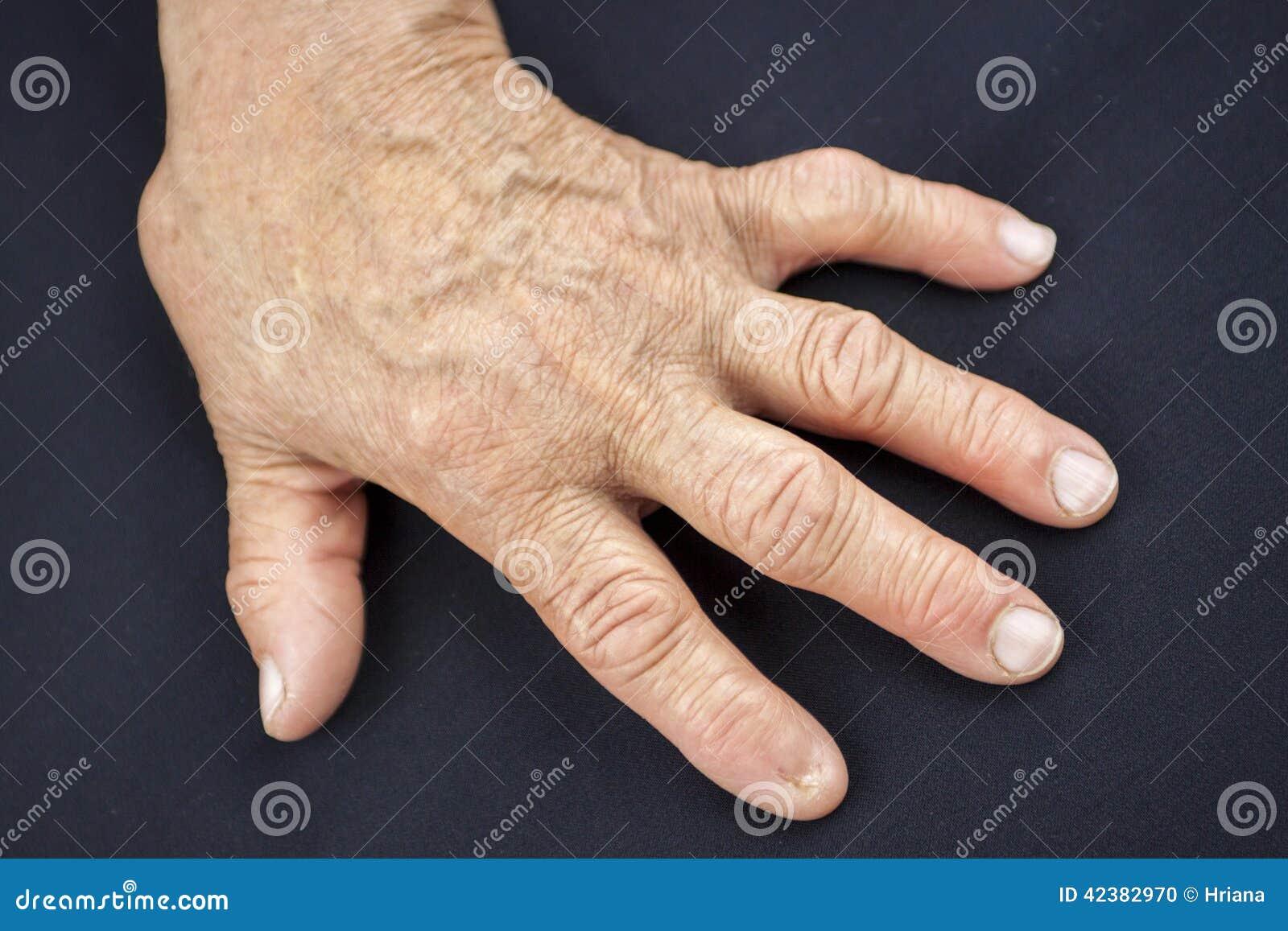 Палец руки без ногтя 19