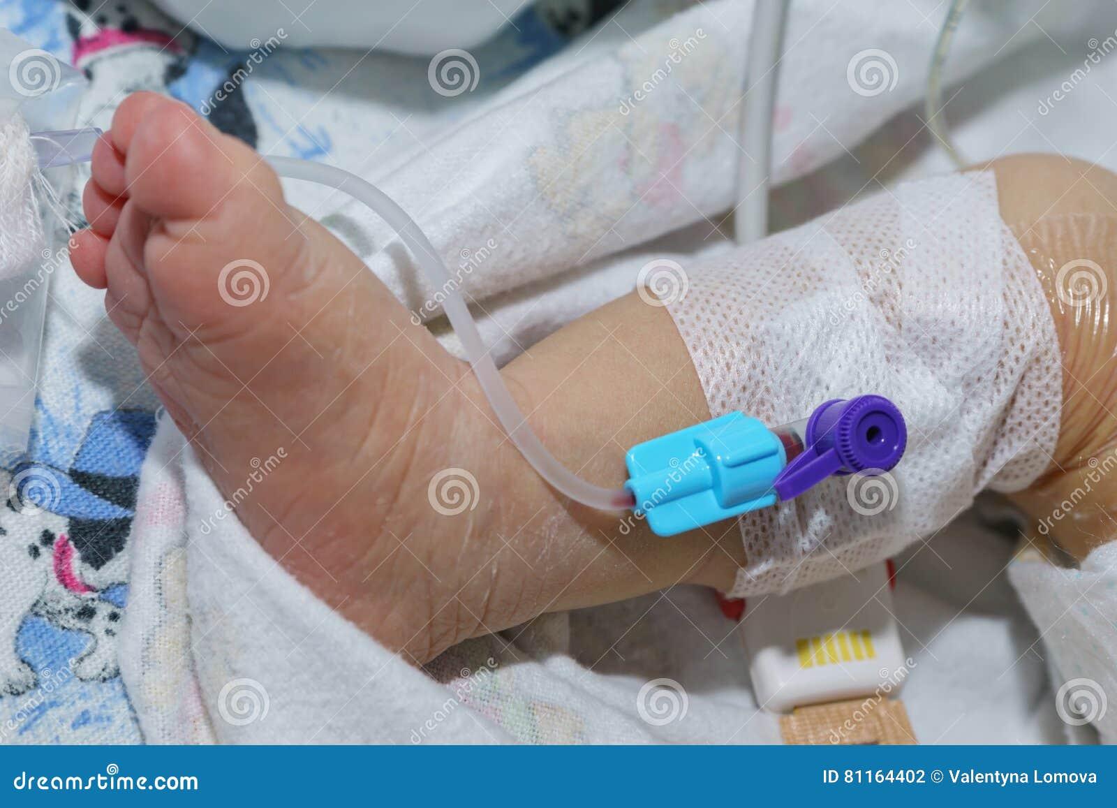 Тщательно соблюдать правила асептики при пункции депо или подключении инфузионного раствора к катетеру хикмана.