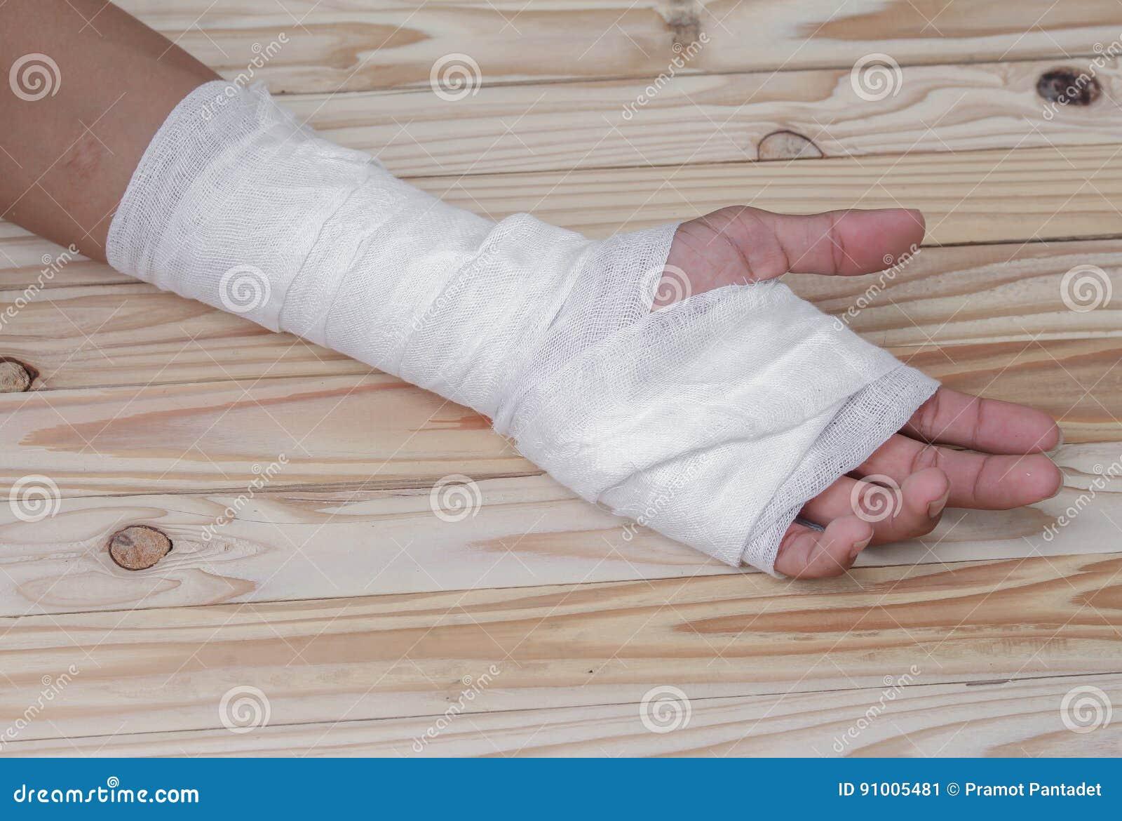Повязка марли контузия руки обрабатывать пациентов с рукой