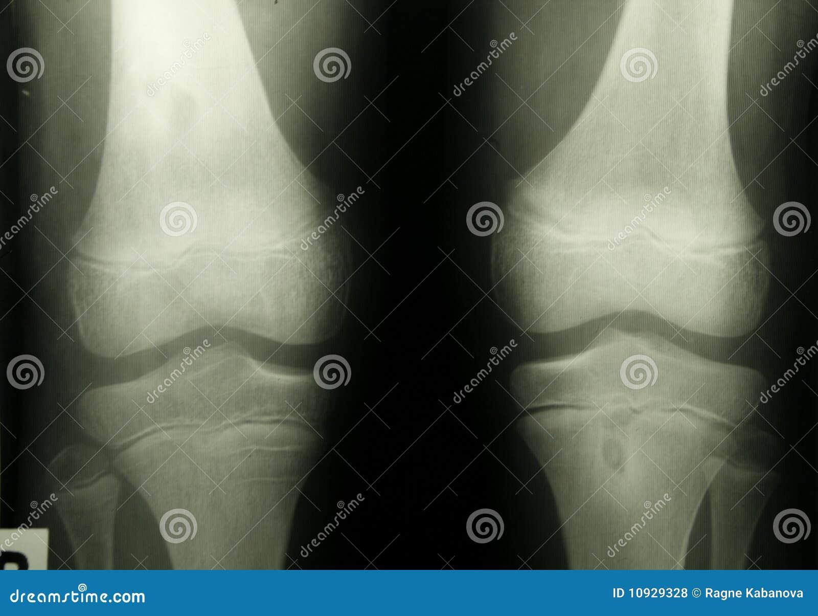 покрывает людской луч фото колена x
