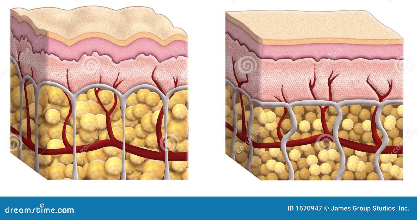 поперечное сечение cellulite