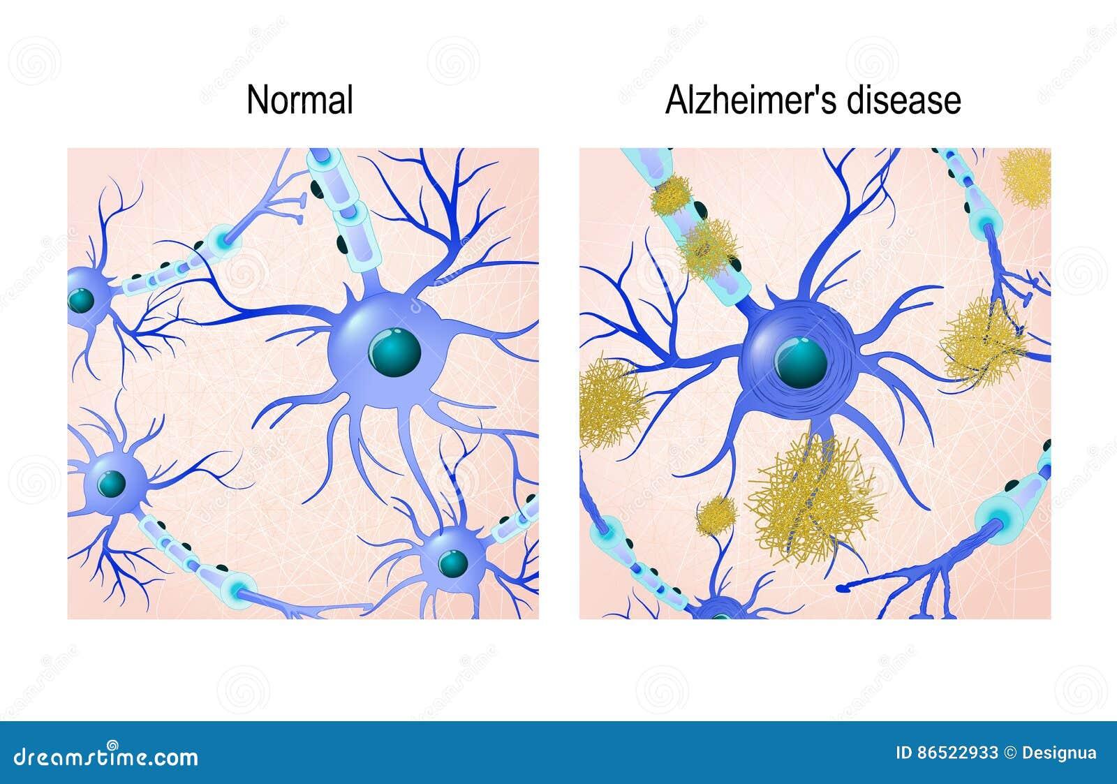 Предпосылка нейронов