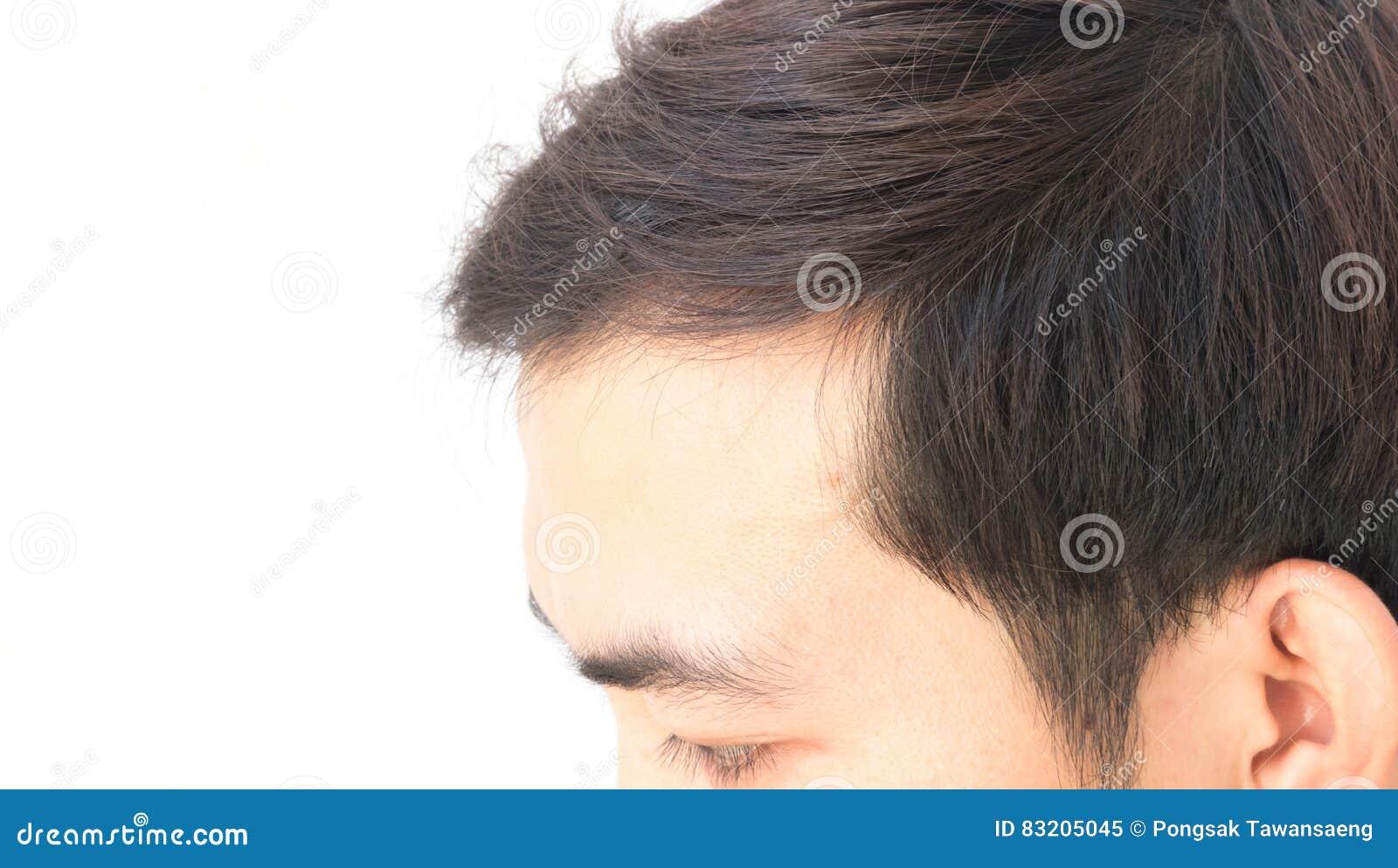 Почему волосы на затылке выпадают волосы