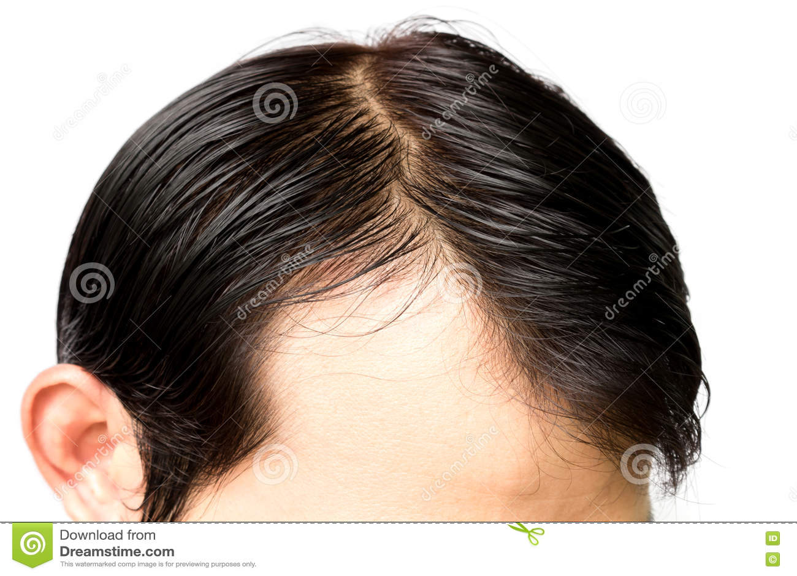 Репейное масло для волос после химиотерапии