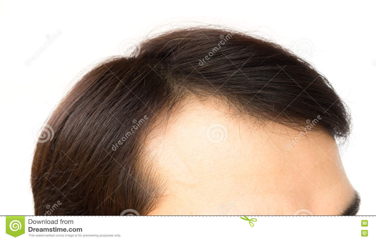Молодые нет волос на поисках пацанов 6