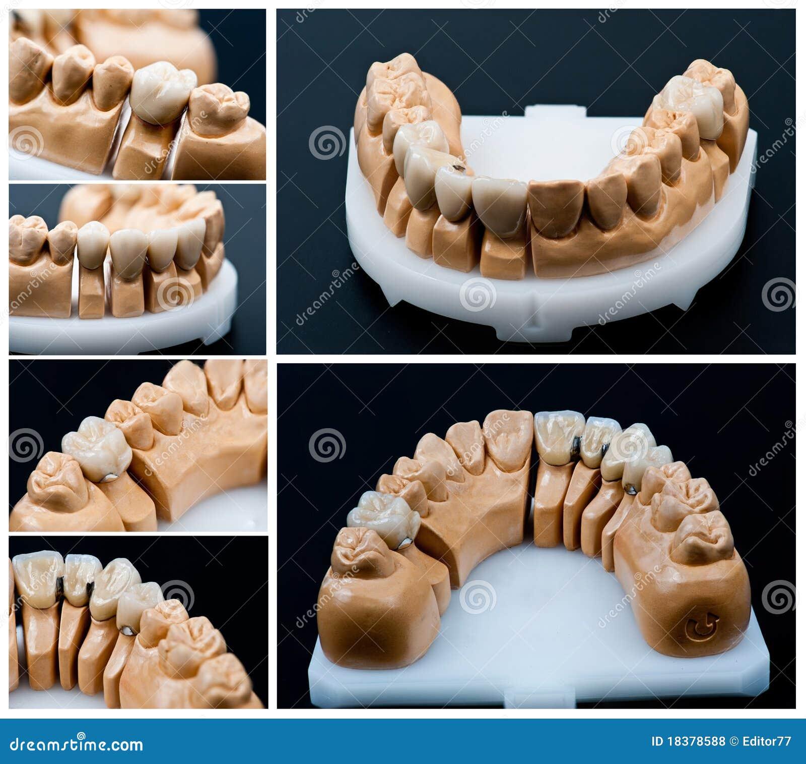 протез моделей коллажа зубоврачебный