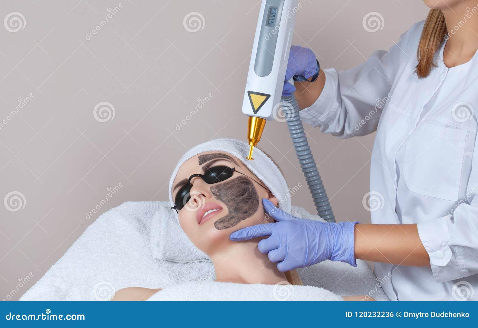 Процедура по шелушения стороны углерода в салоне красоты Обработка косметологии оборудования