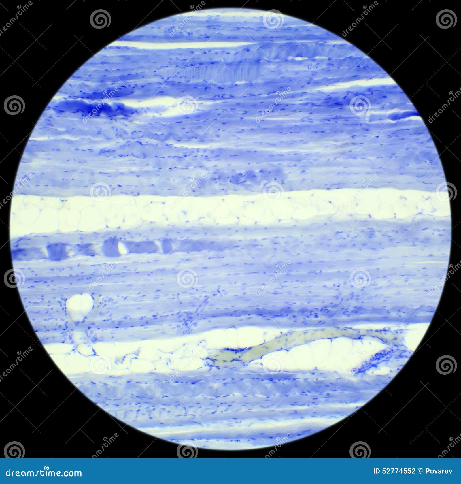 Продольный разрез ткани скелетной мышцы под микроскопом,