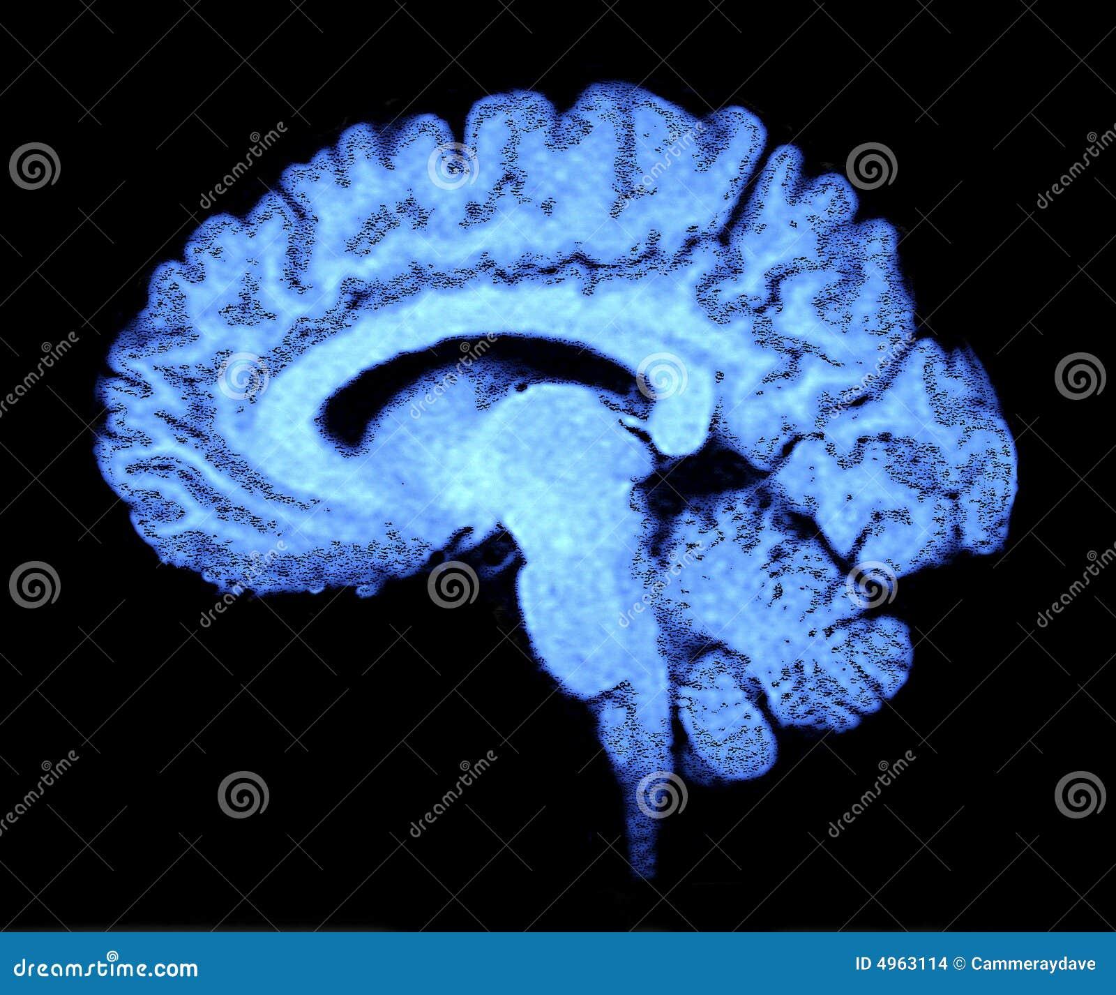 развертка мозга