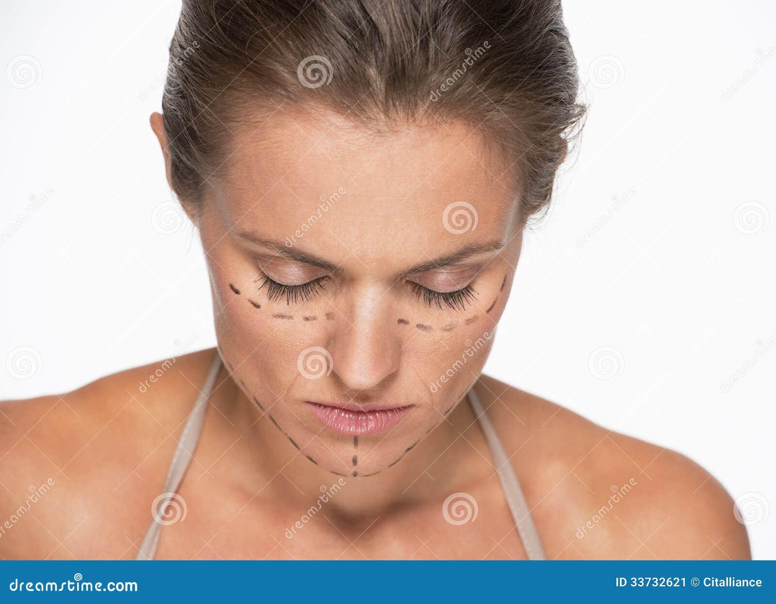 Разочарованная женщина с метками пластической хирургии на стороне