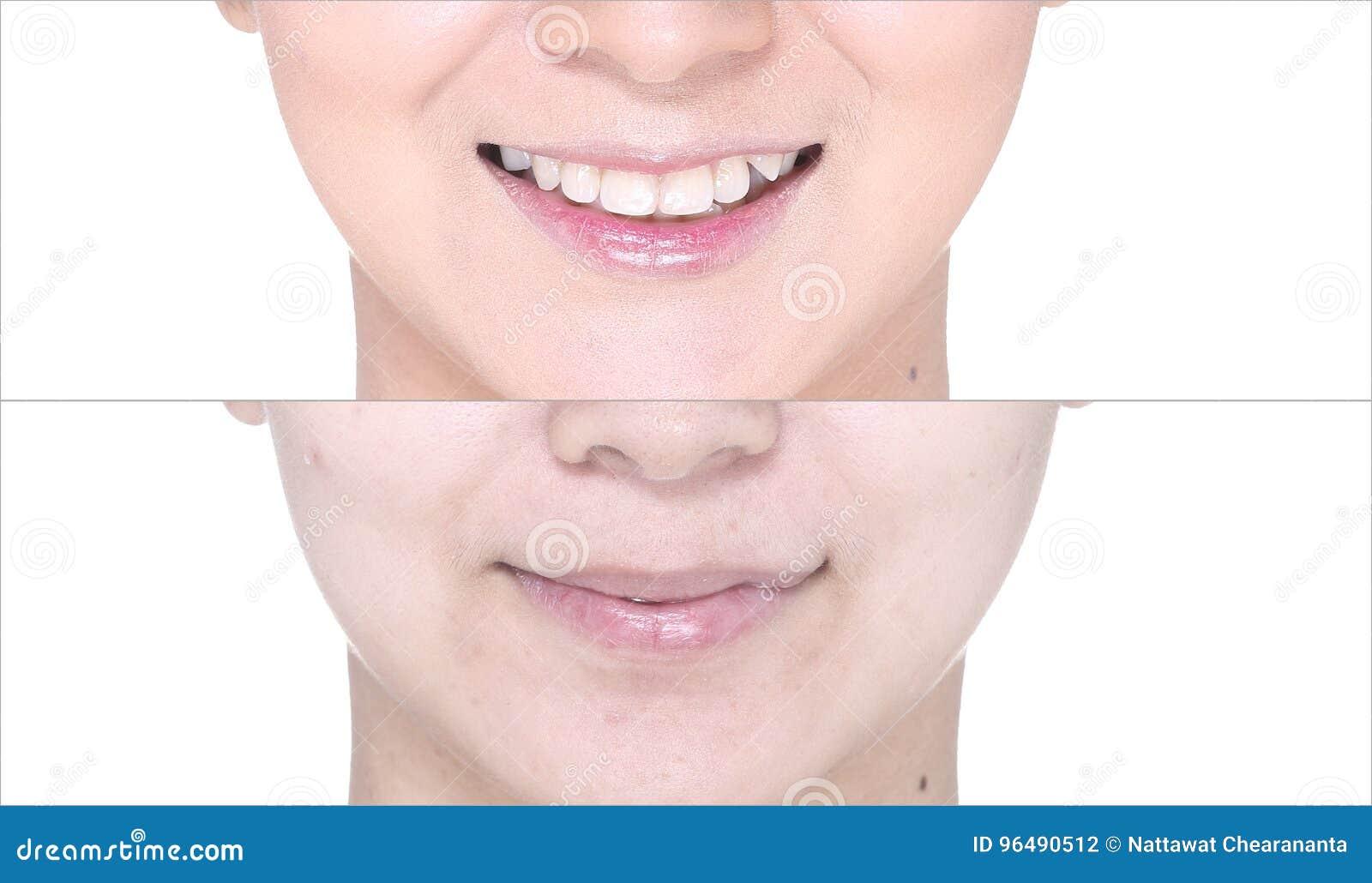 Раньше после, используя губную помаду на губе moutth лоском и заточите