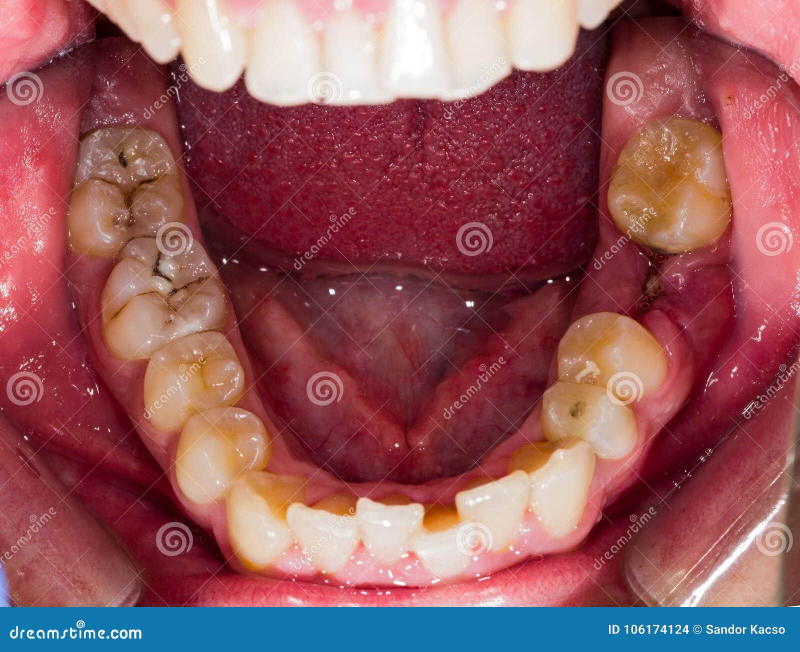 Распадаясь человеческие зубы