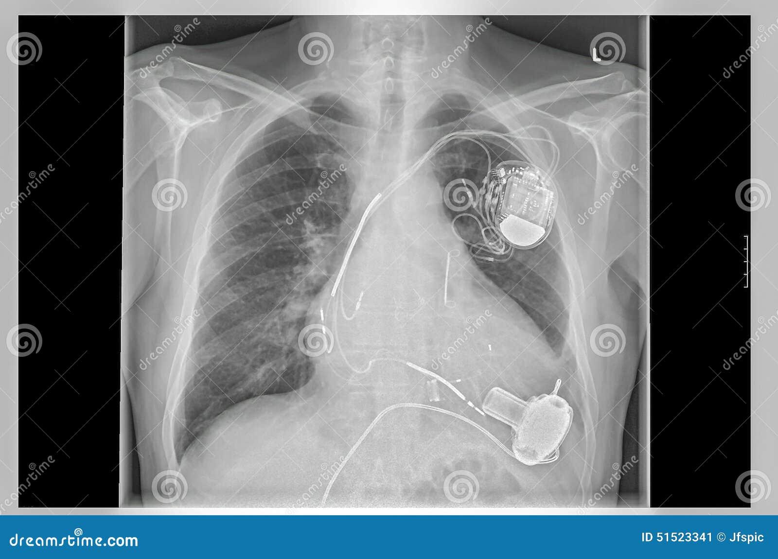 Рентгенизируйте изображение, связи, ритмоводитель искусственного сердца