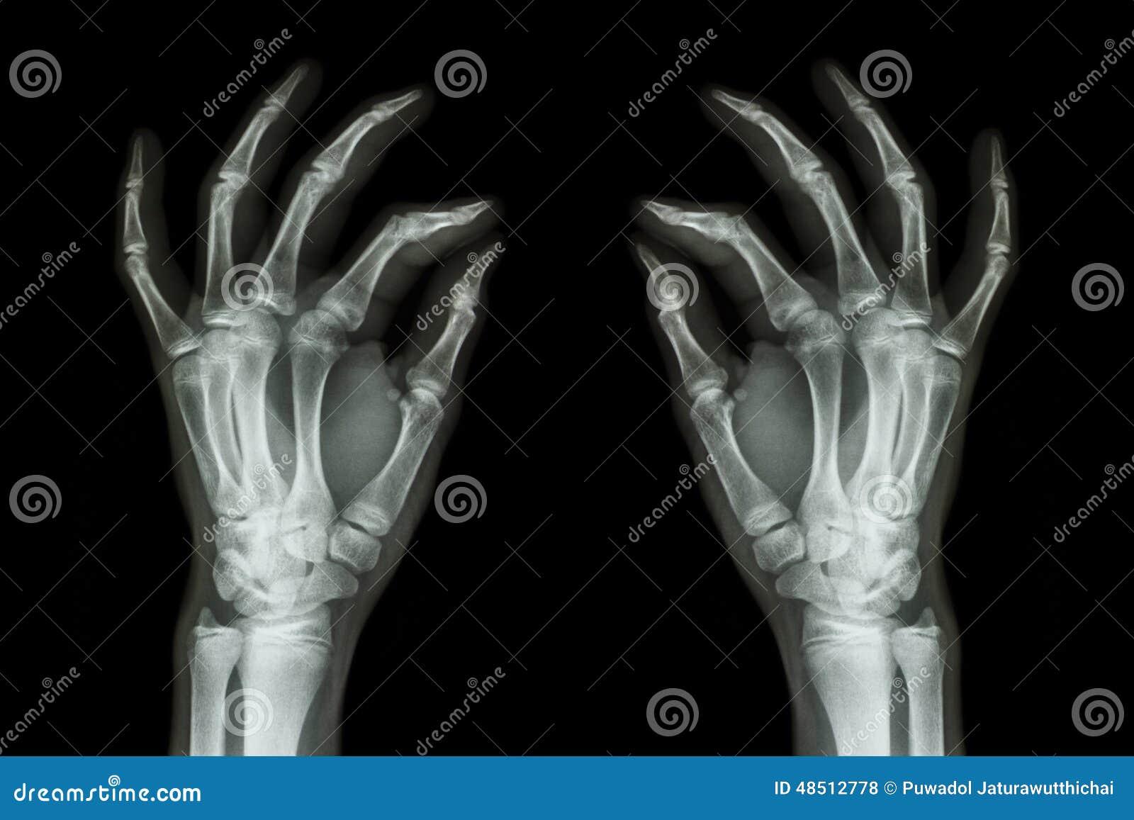 Рентгенизируйте нормальные человеческие руки (фронт) на черной предпосылке