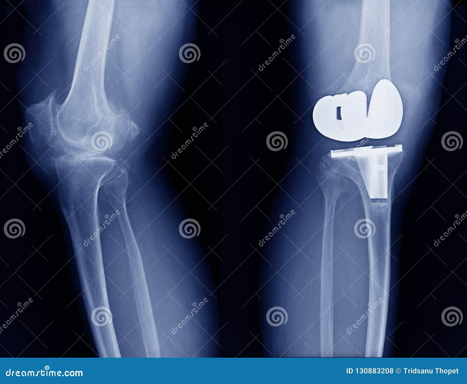 Рентгеновский снимок высоты качественный с заменой соединения колена