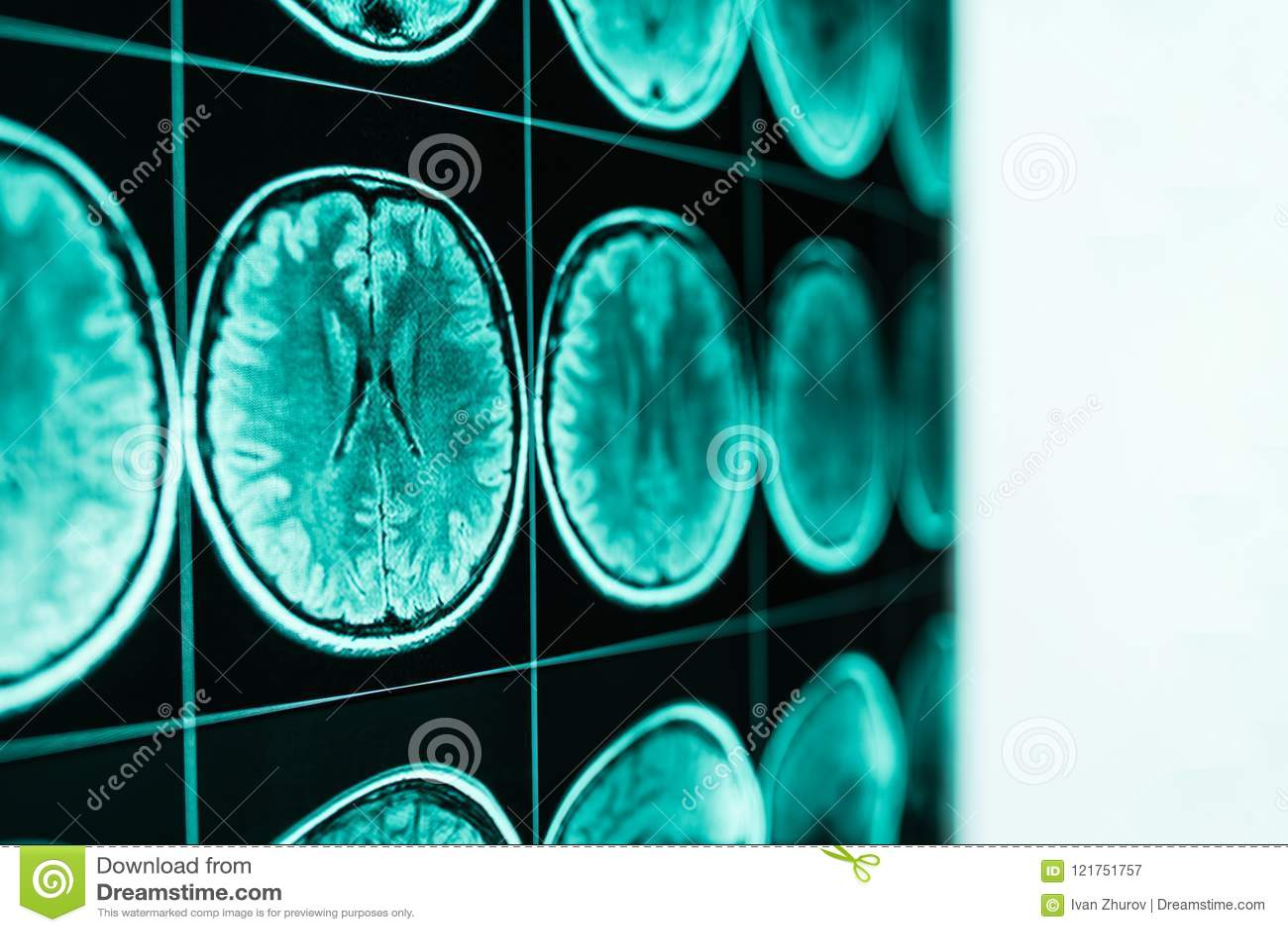 Рентгеновский снимок головы и мозга, MRI, в defocus