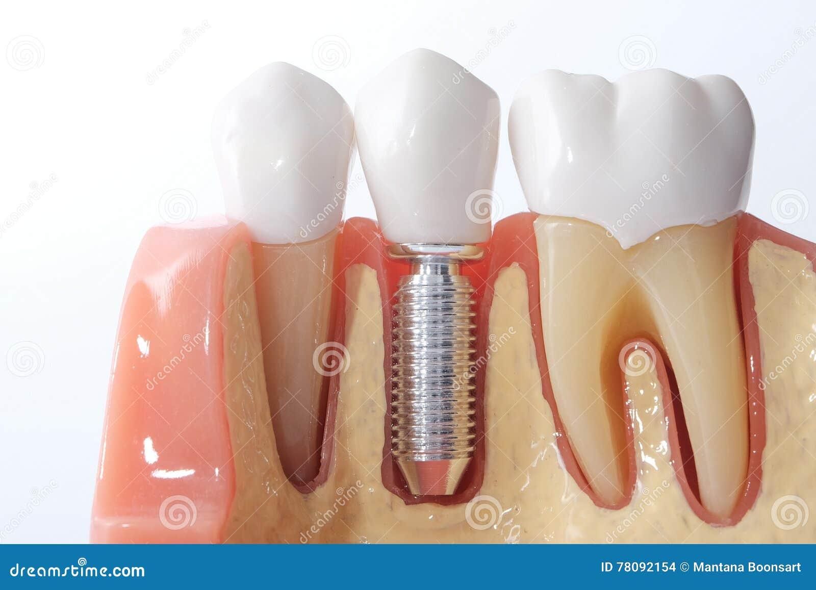 Родовая зубоврачебная модель зубов