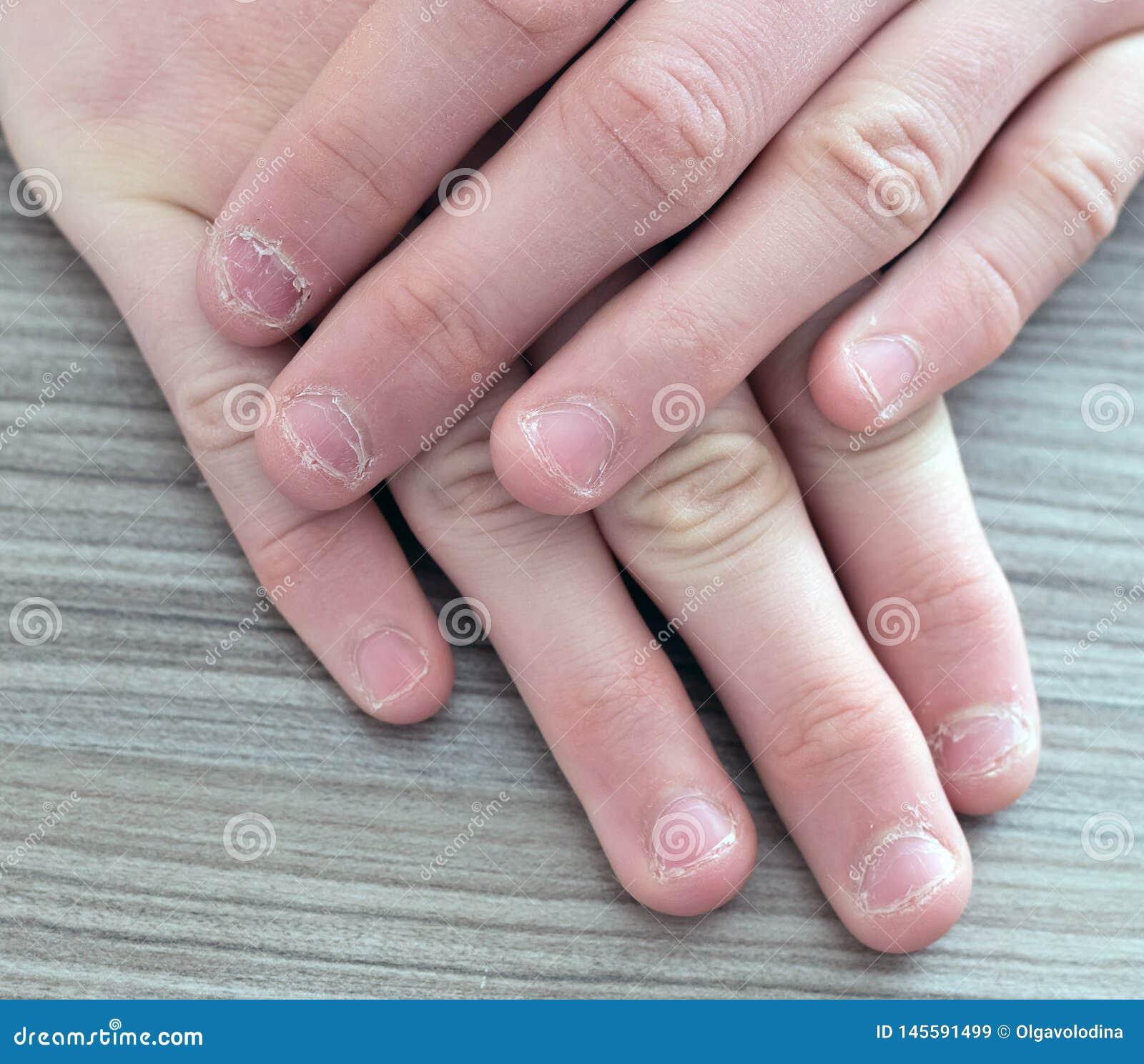 Руки подростка с заусенцами на ногте Ноготь клевов