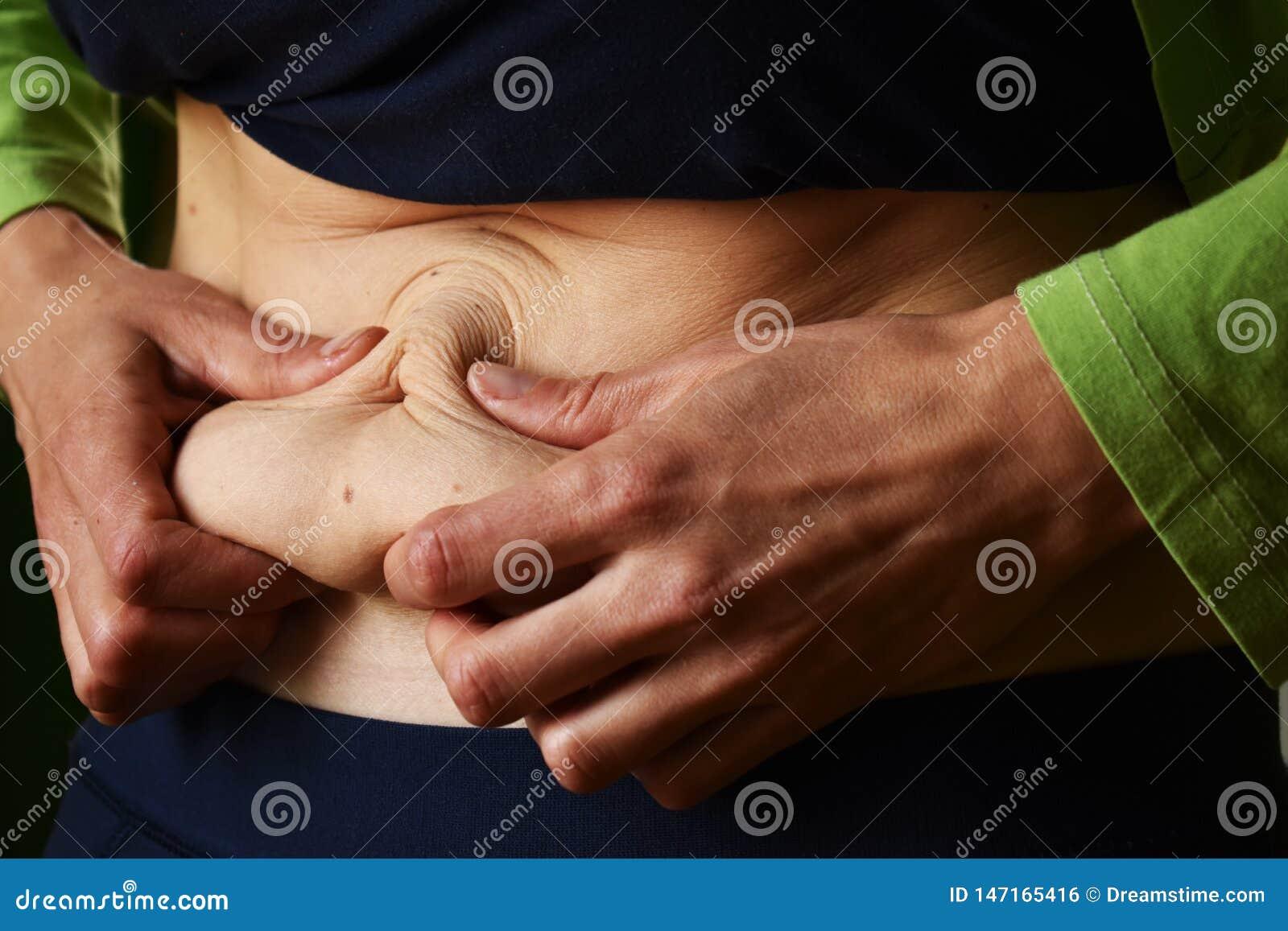 Сверхнормальная кожа на животе женщины после доставки
