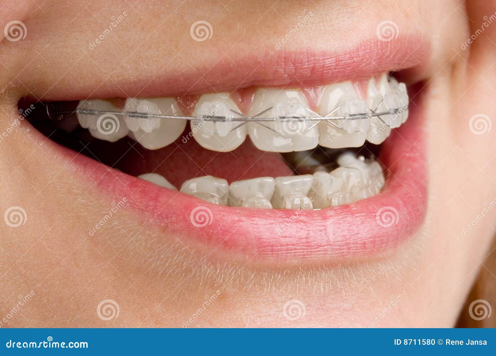 связывает зубы